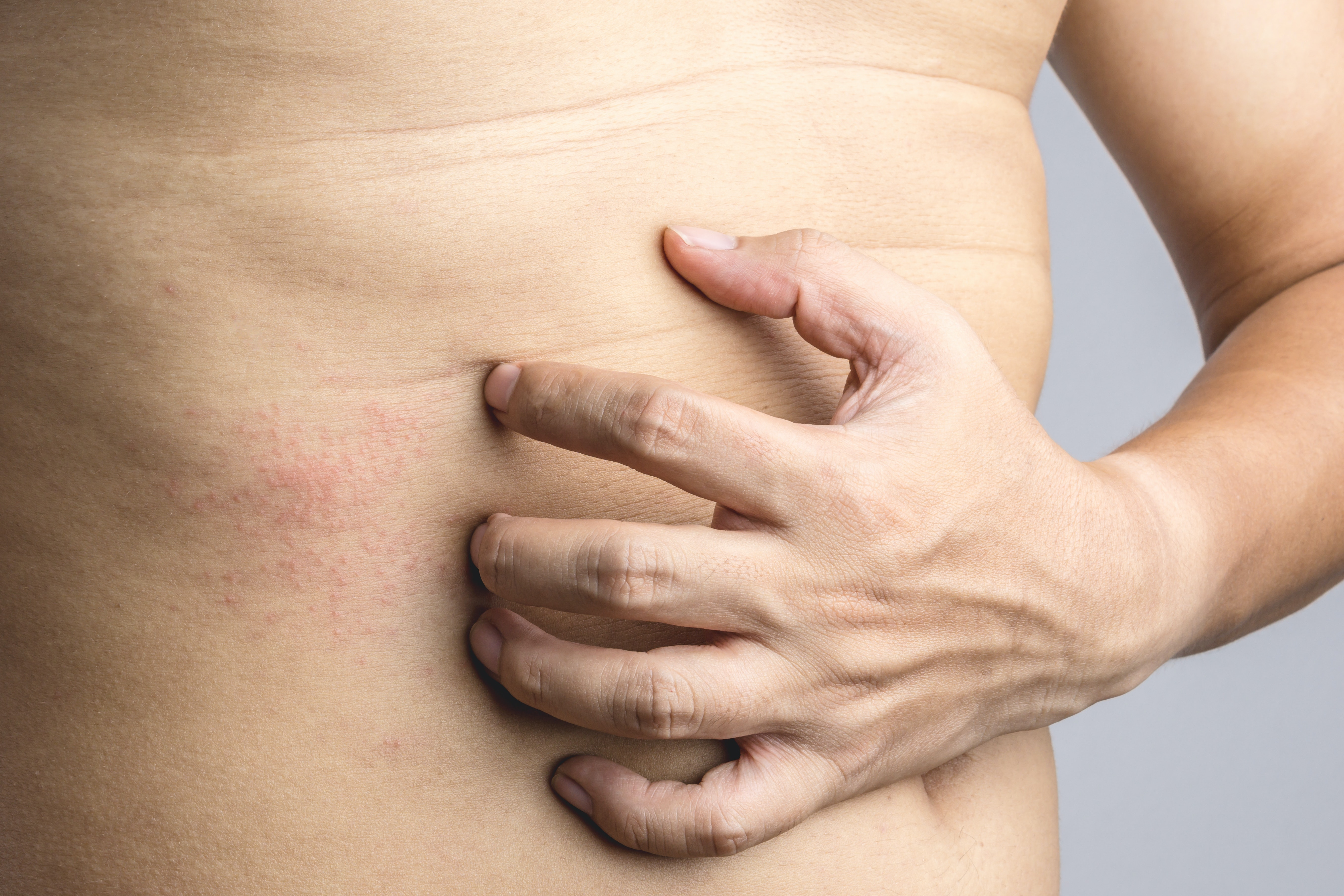 An image depicting a person suffering from abdomen itch symptoms