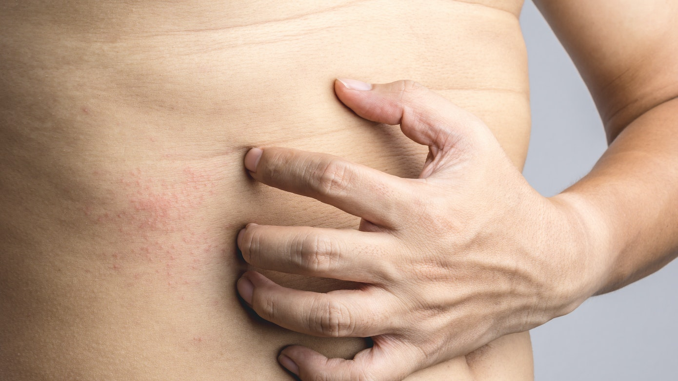 Abdomen Itch Symptoms, Causes & Common Questions | Buoy