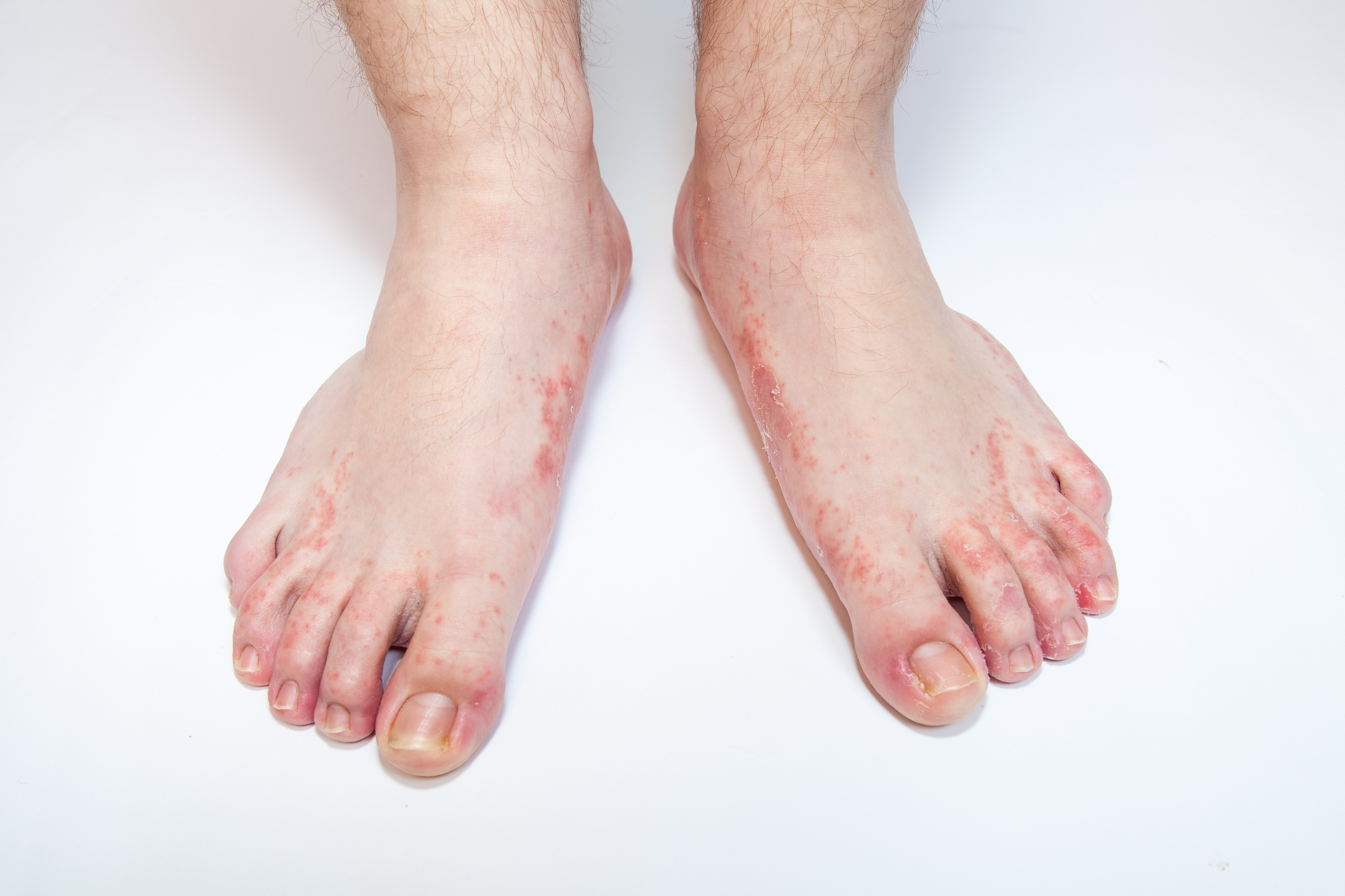 Cracks in the fingers and toes: causes 84