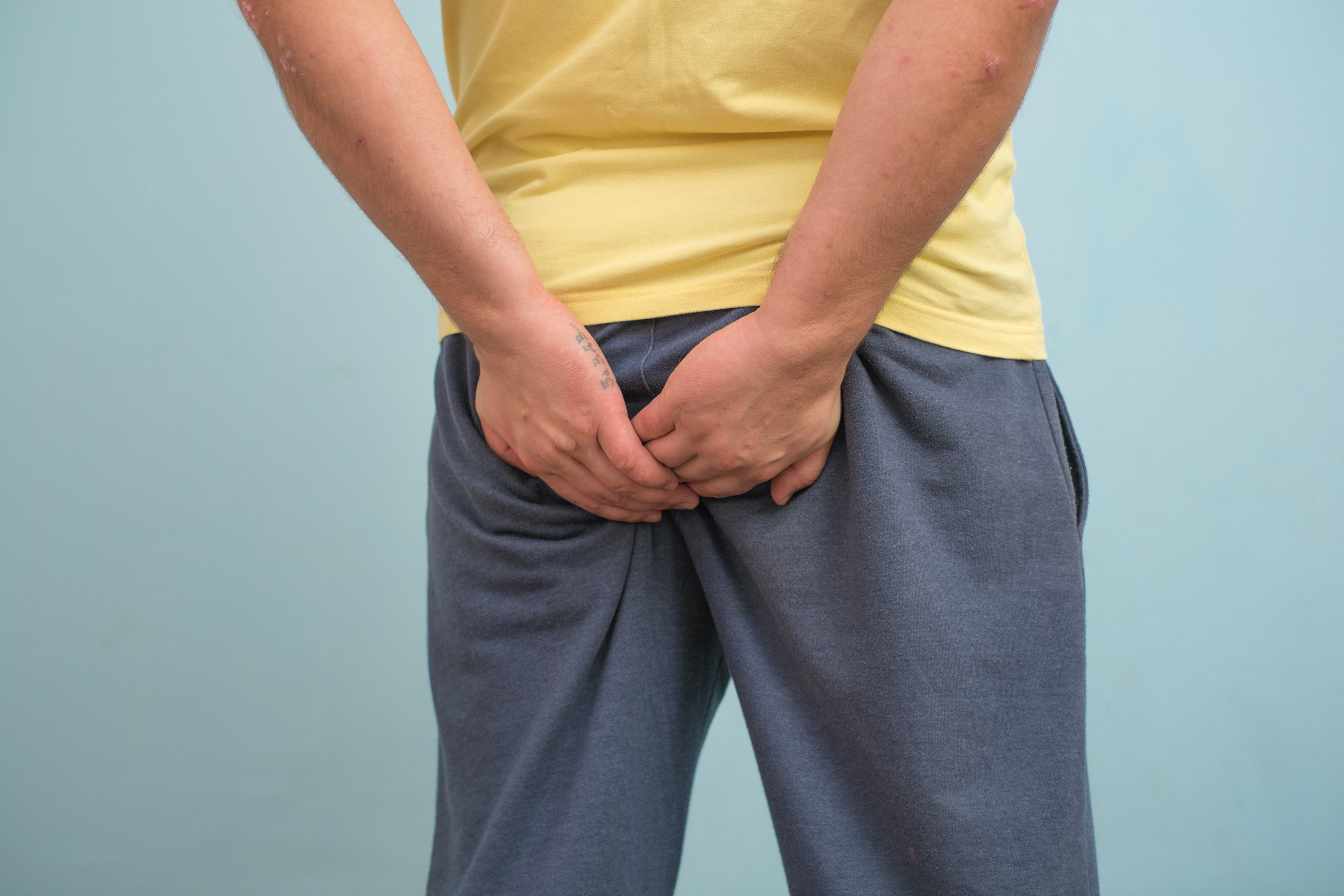 An image depicting a person suffering from anal mucous discharge symptoms