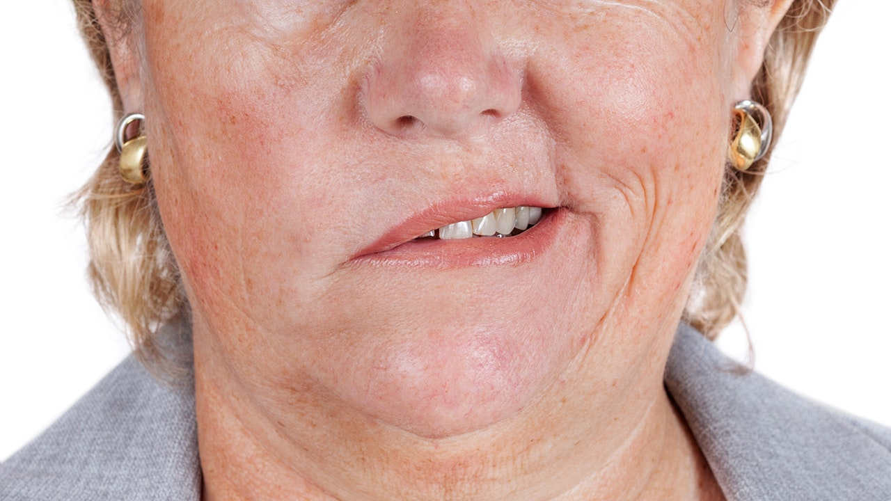 An image depicting a person suffering from asymmetrical smile symptoms