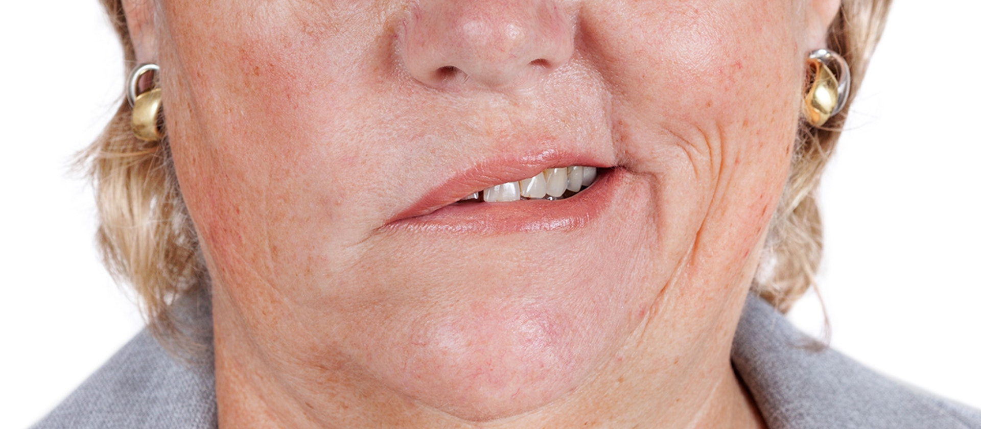 asymmetrical smile symptoms causes common questions buoy
