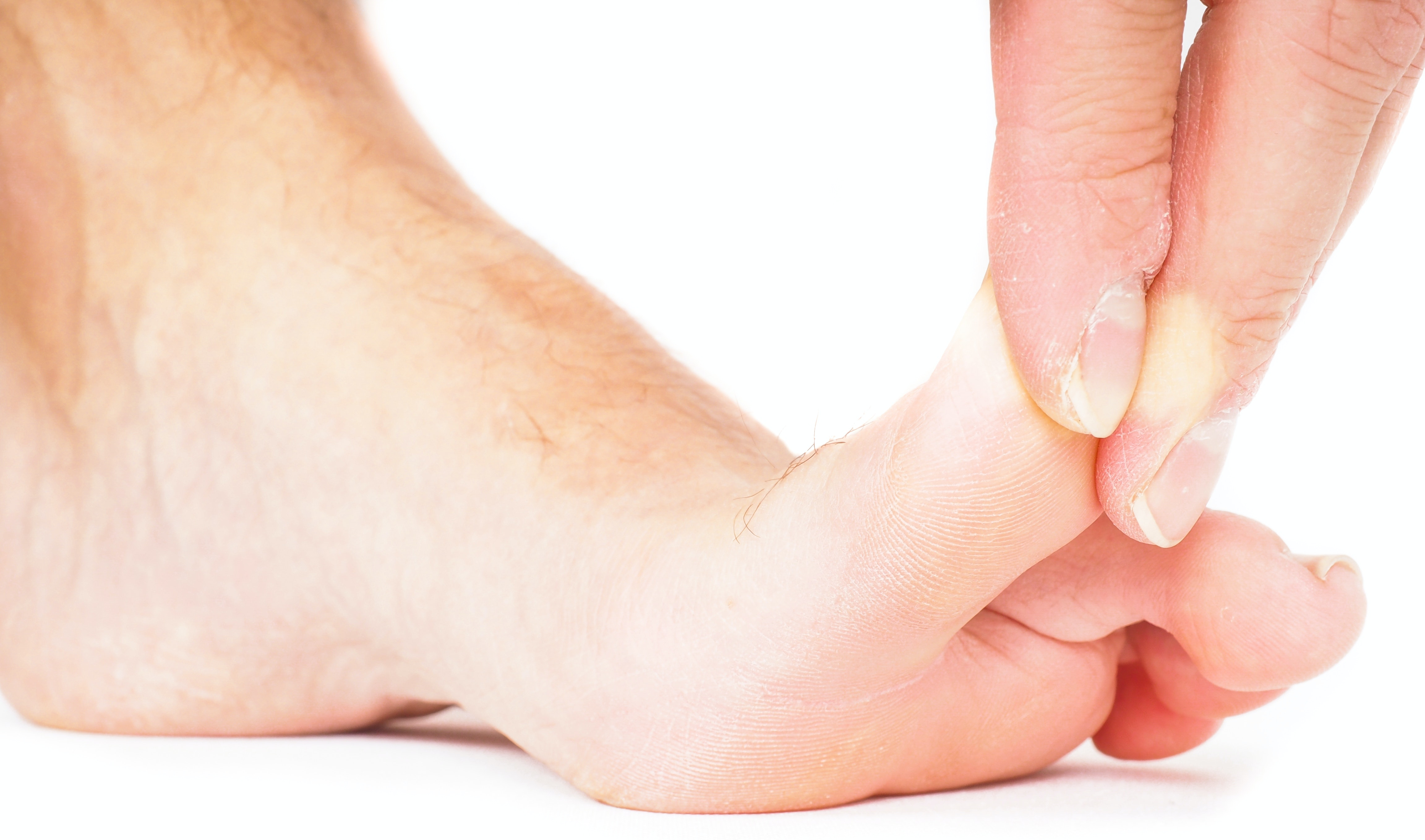 An image depicting a person suffering from big toe pain symptoms