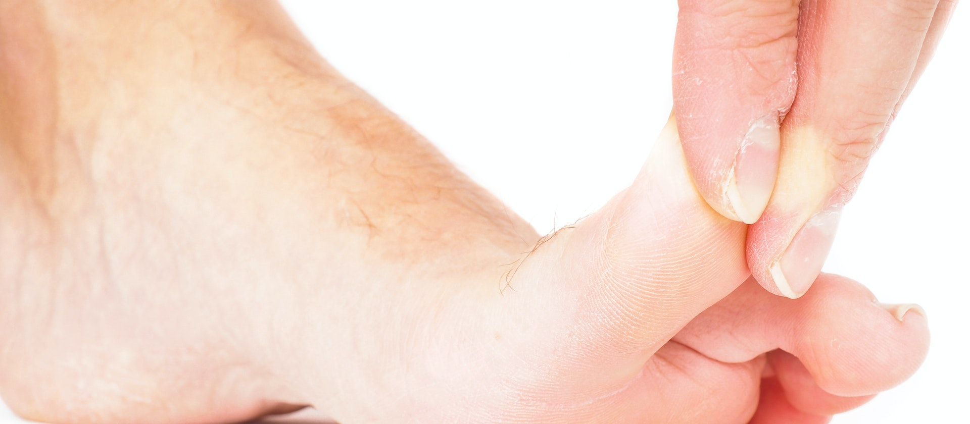 A Person Experiencing Toe Pain Symptoms