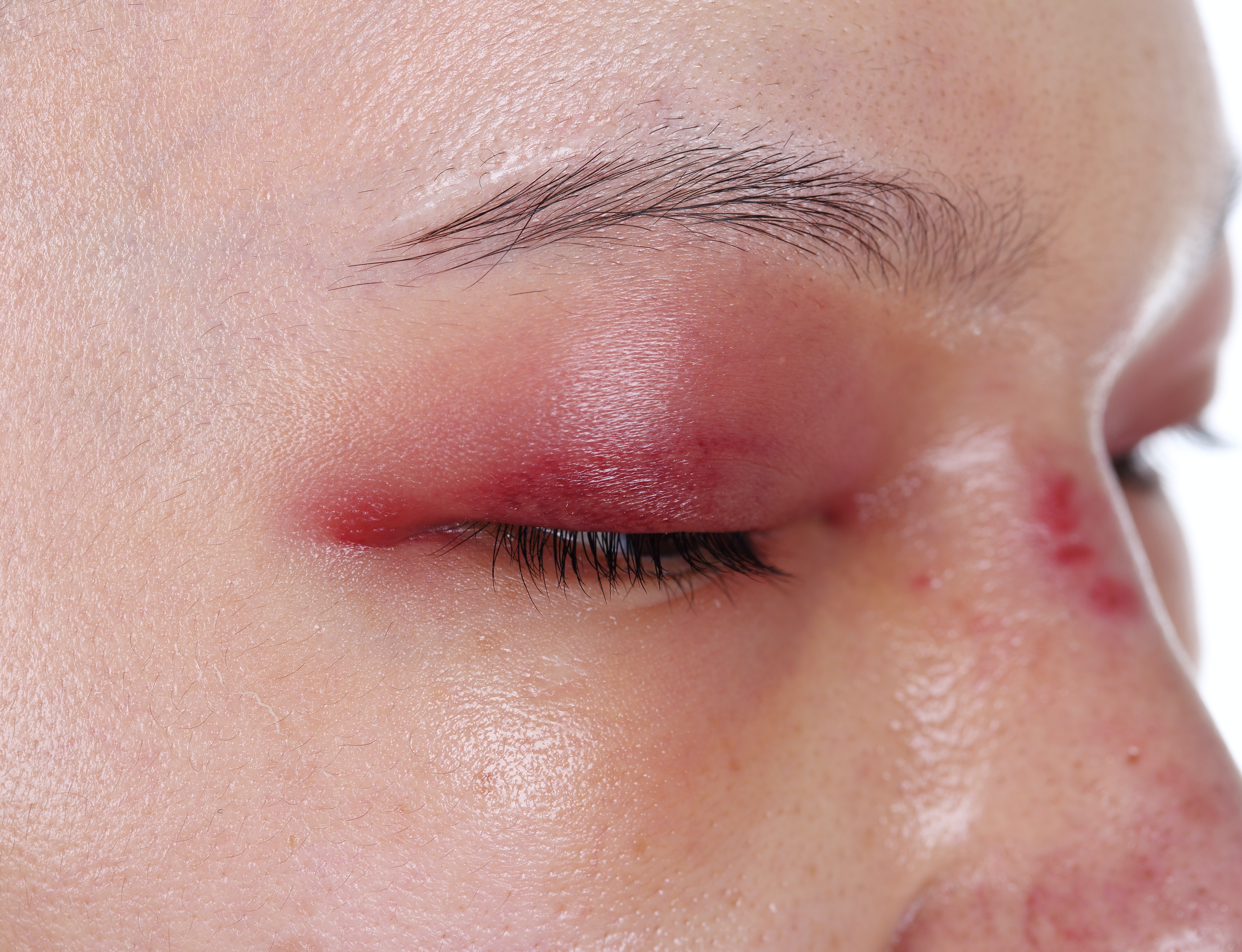 An image depicting a person suffering from bilateral eye swelling symptoms