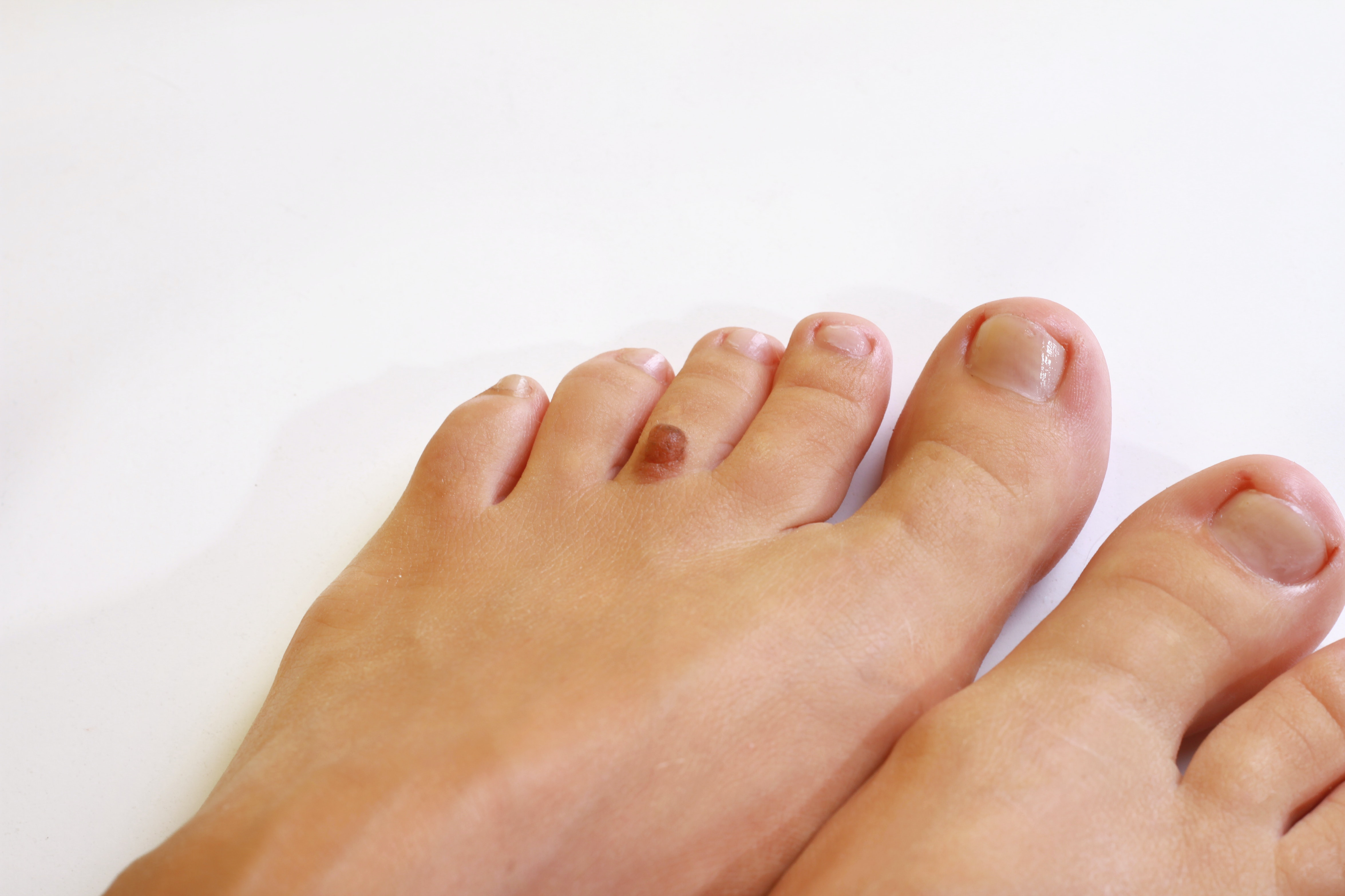 An image depicting a person suffering from black or brown foot bump symptoms