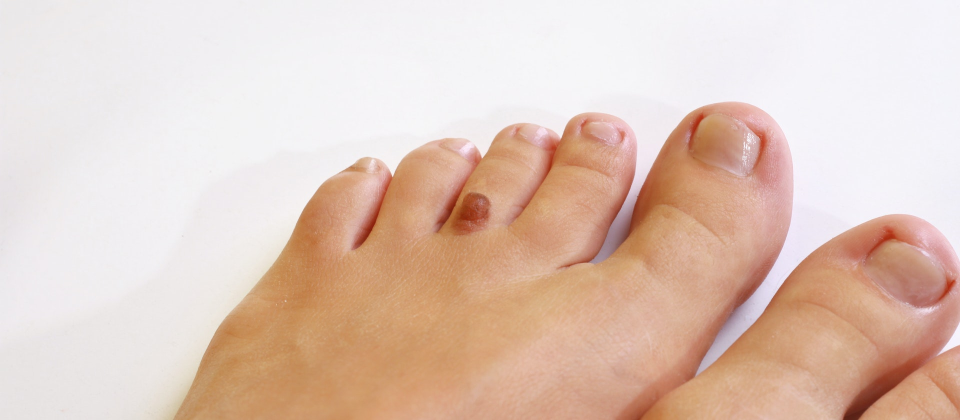 Black or Brown Foot Bump Symptoms, Causes & Common Questions | Buoy