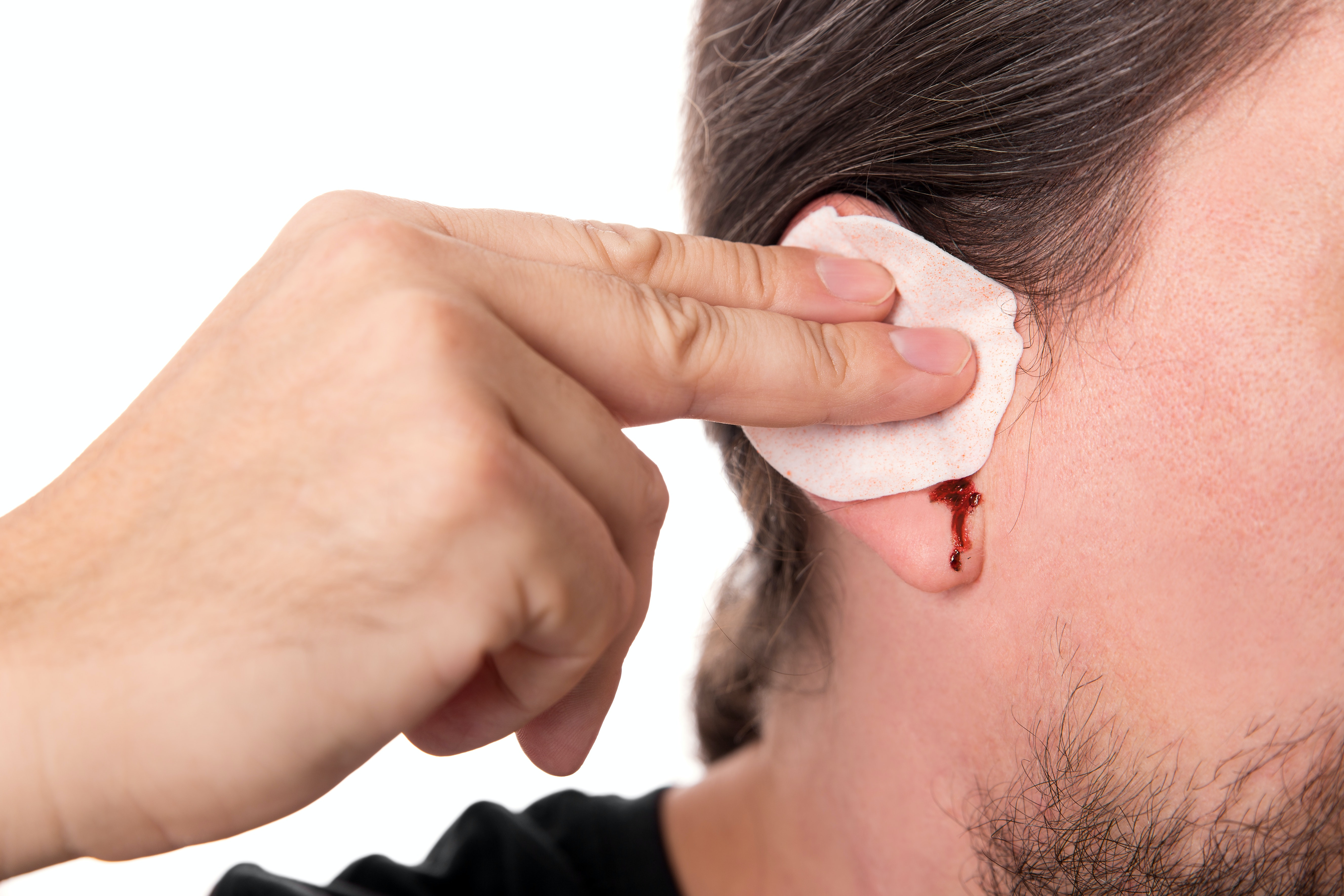 An image depicting a person suffering from bleeding from the ear symptoms