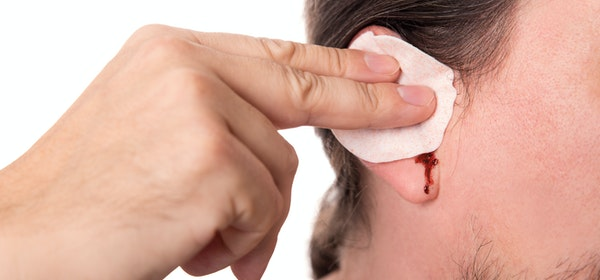 Bleeding From the Ear Symptoms, Causes & Treatment Options | Buoy