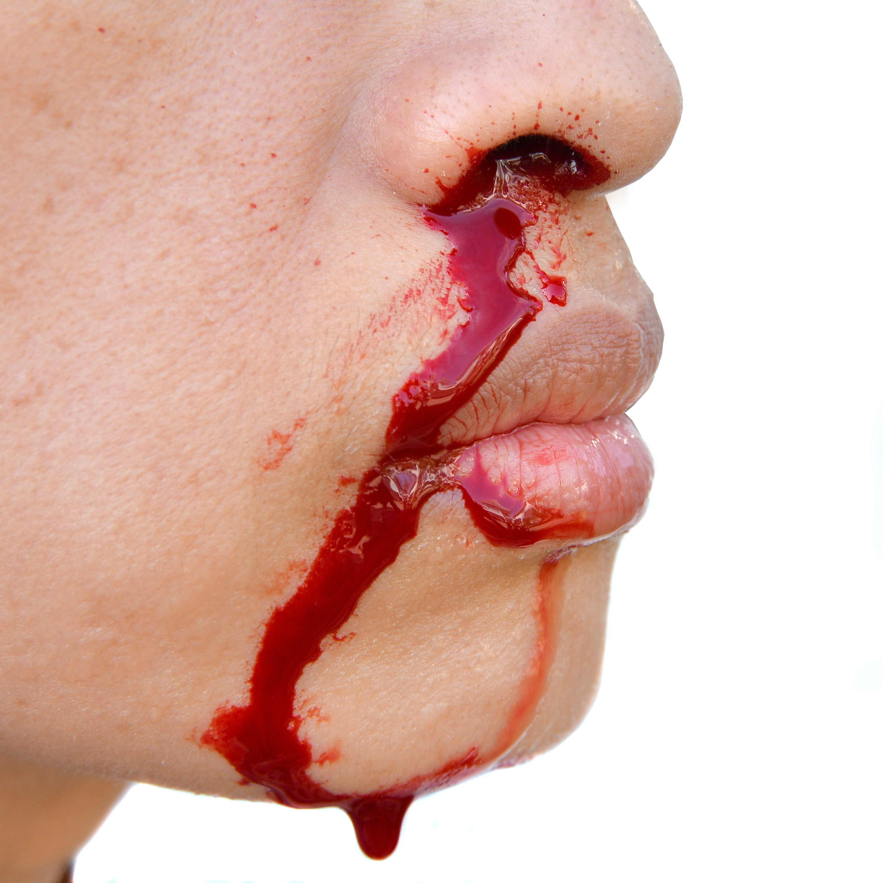 An image depicting a person suffering from bloody nose after being hit in the nose symptoms