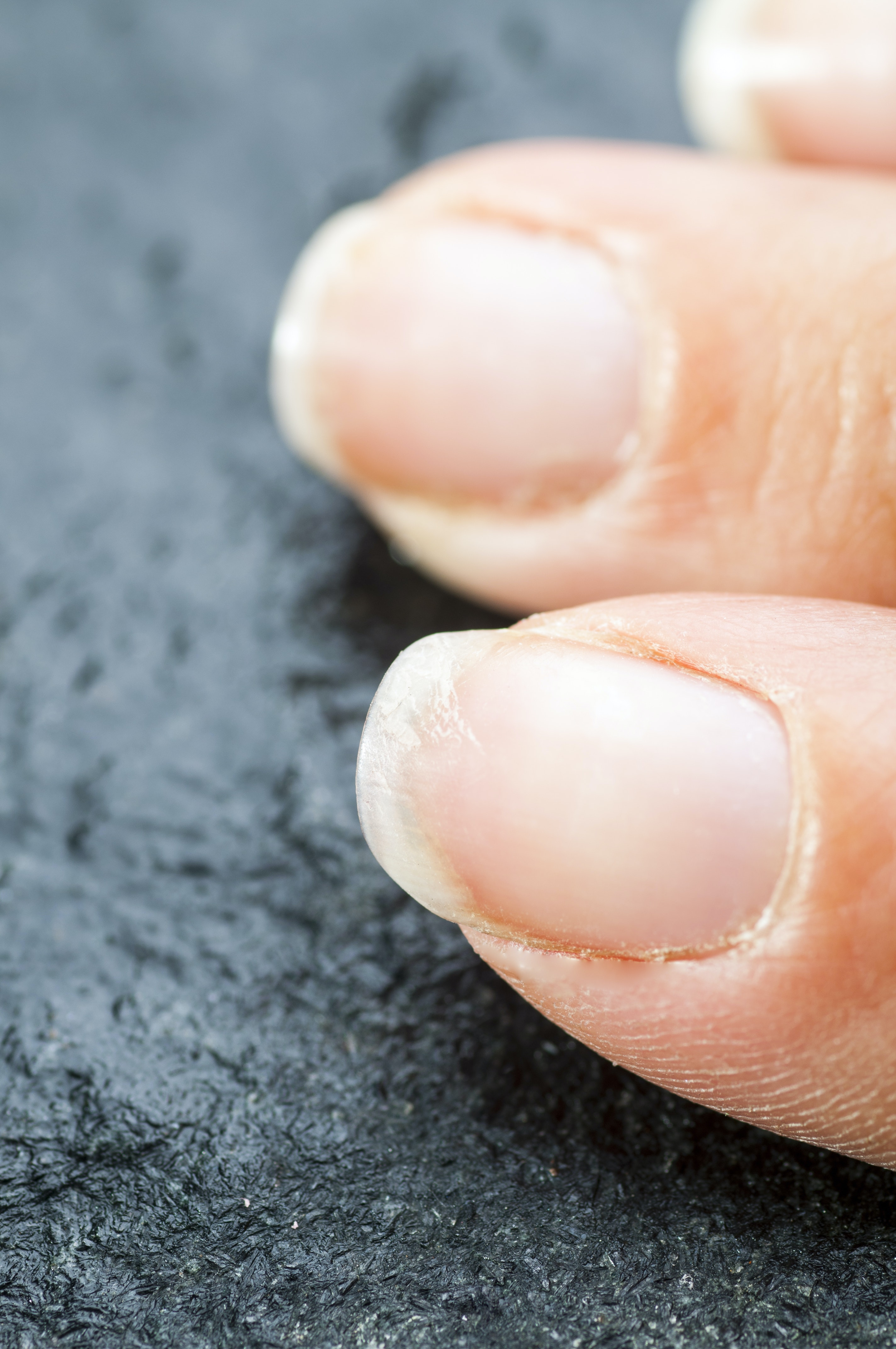 An image depicting a person suffering from brittle fingernails symptoms
