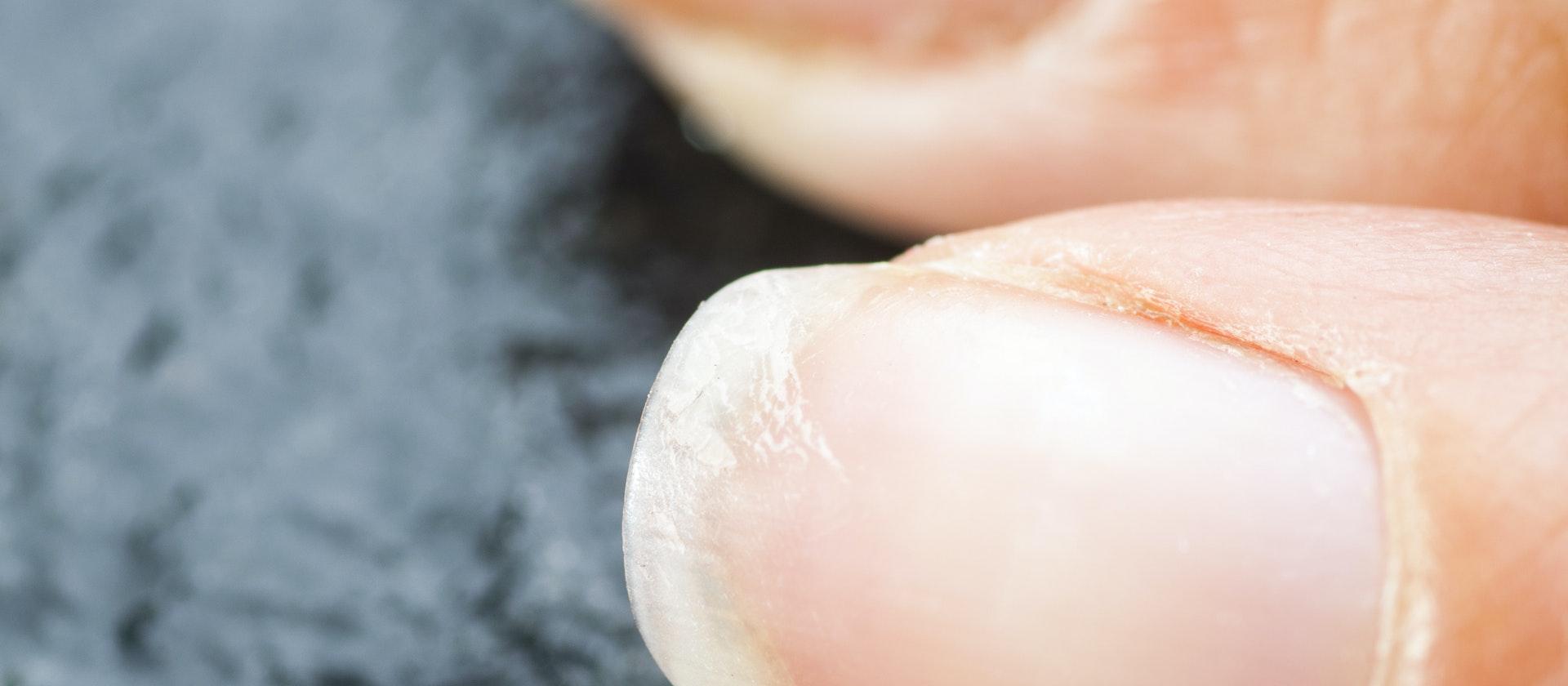 A Person Experiencing Brittle Fingernails Symptoms