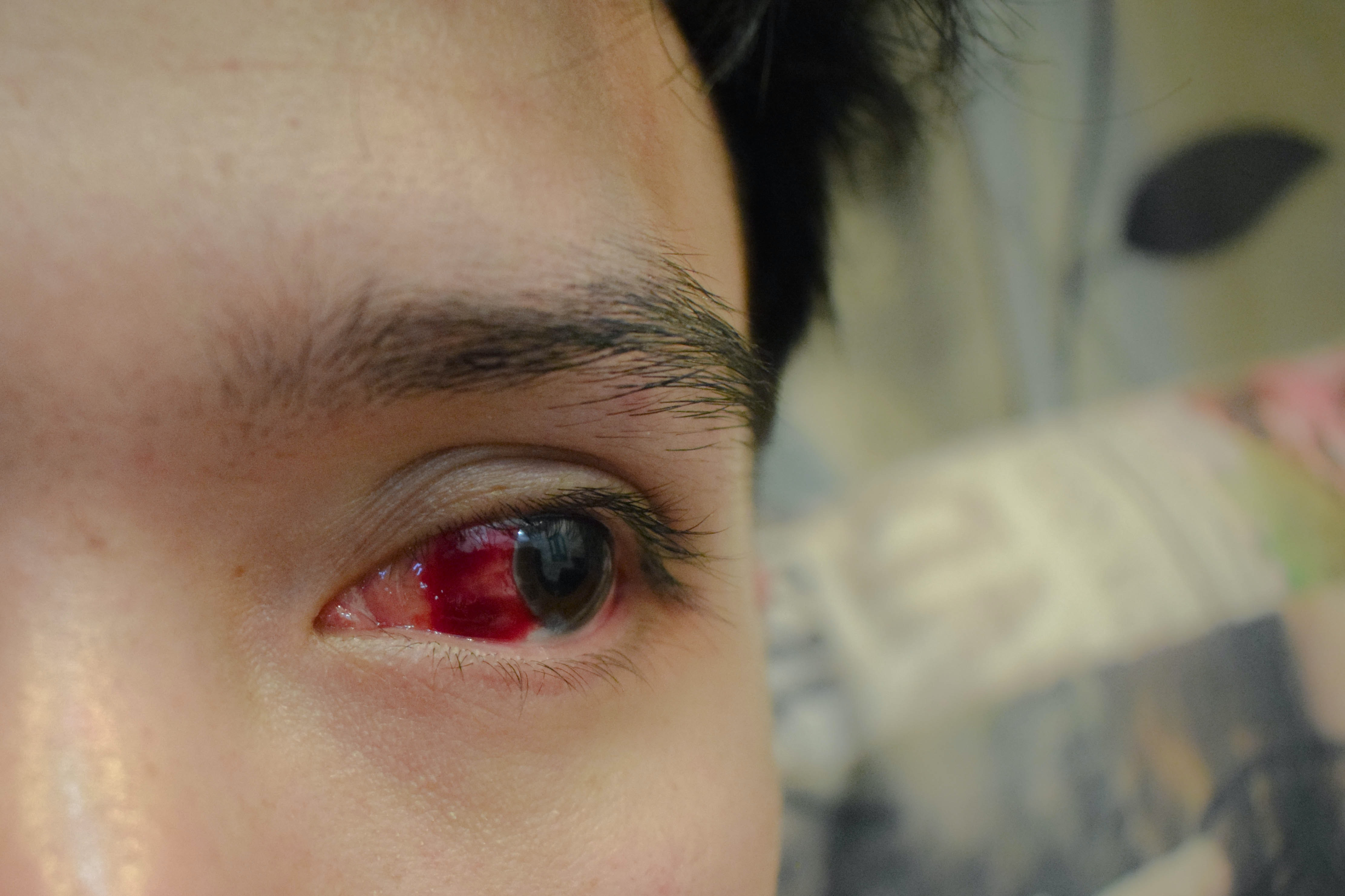 The vessel in the eye burst: treatment and the causes