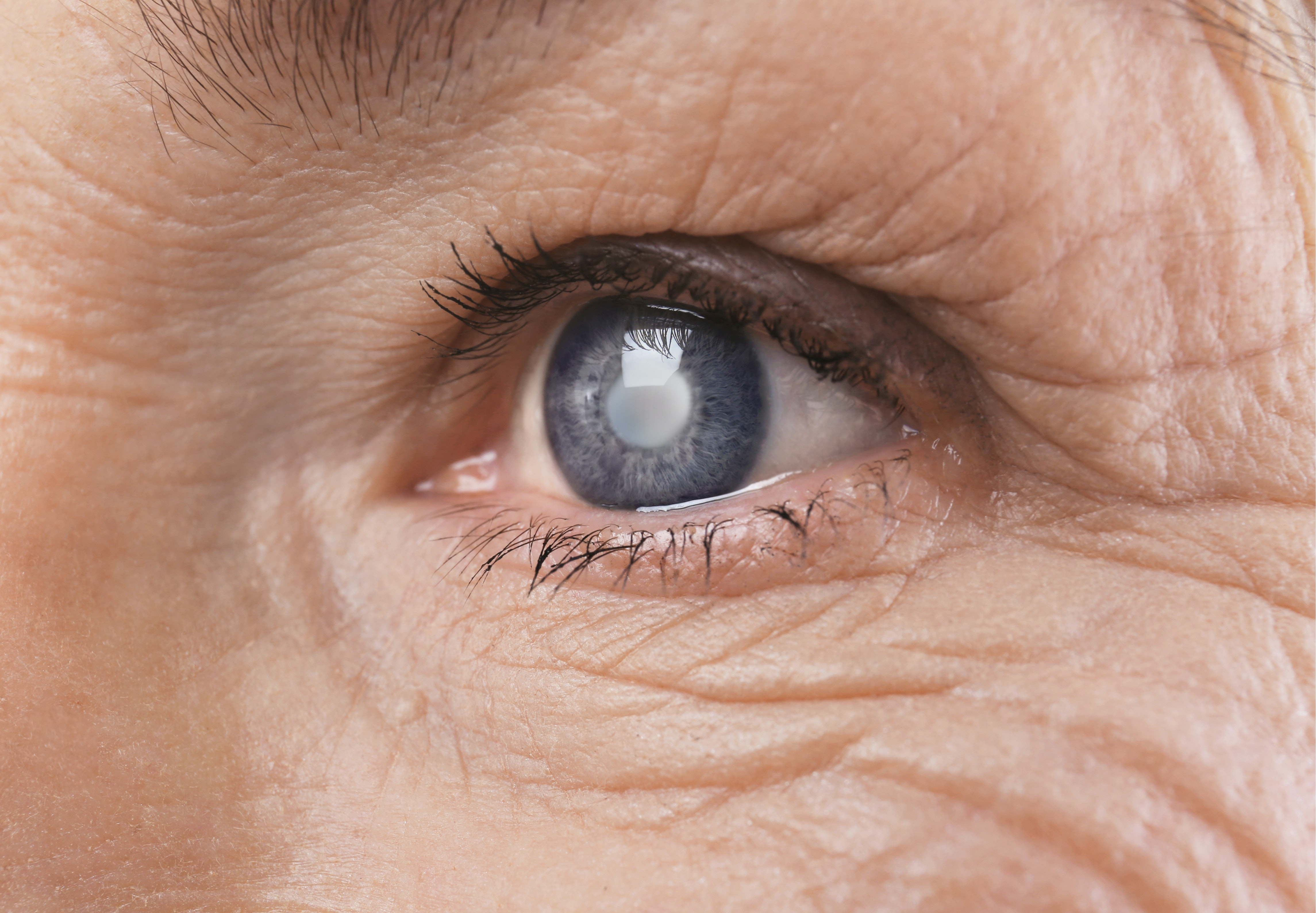 An image depicting a person suffering from cataract symptoms