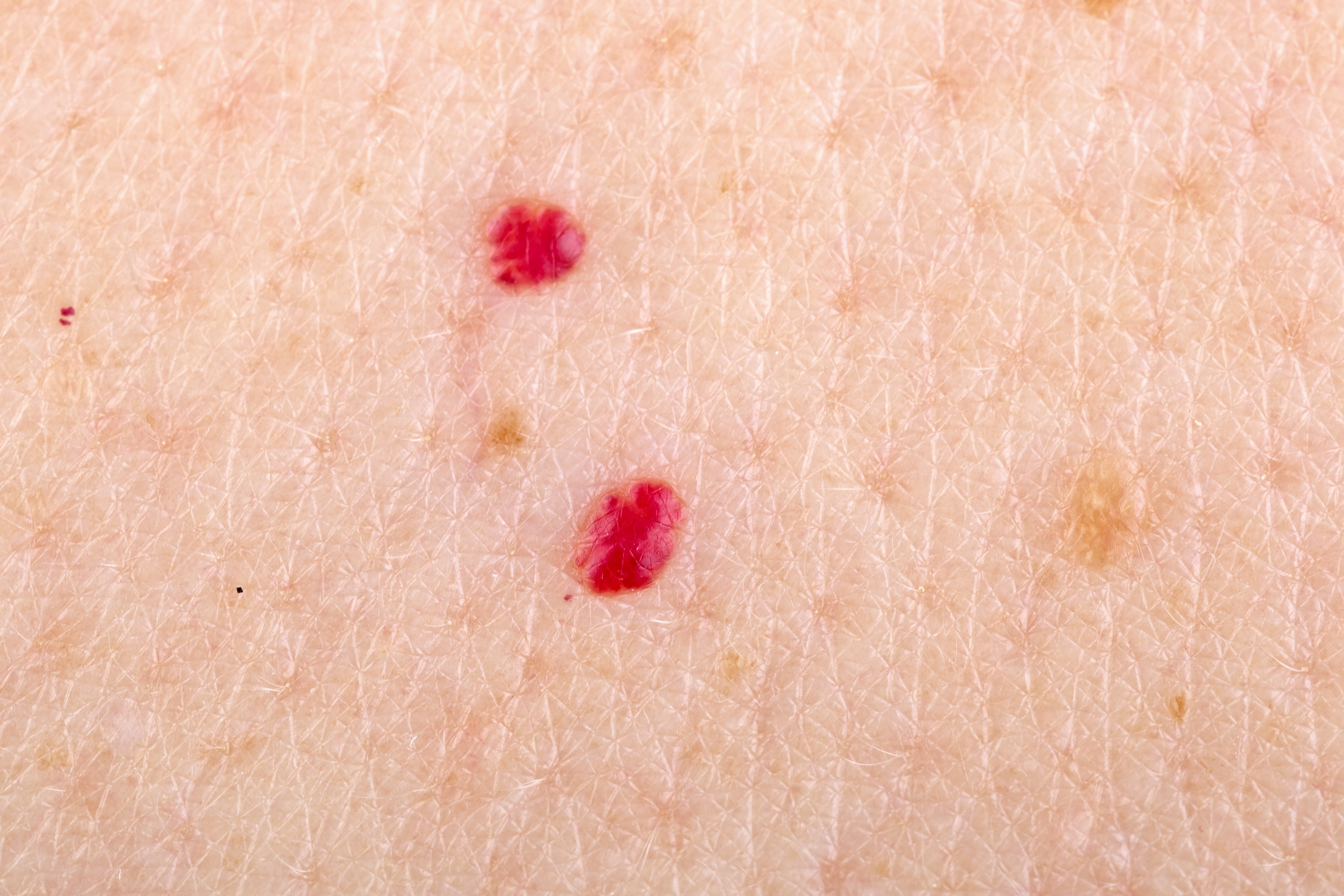 An image depicting a person suffering from Cherry Angioma symptoms