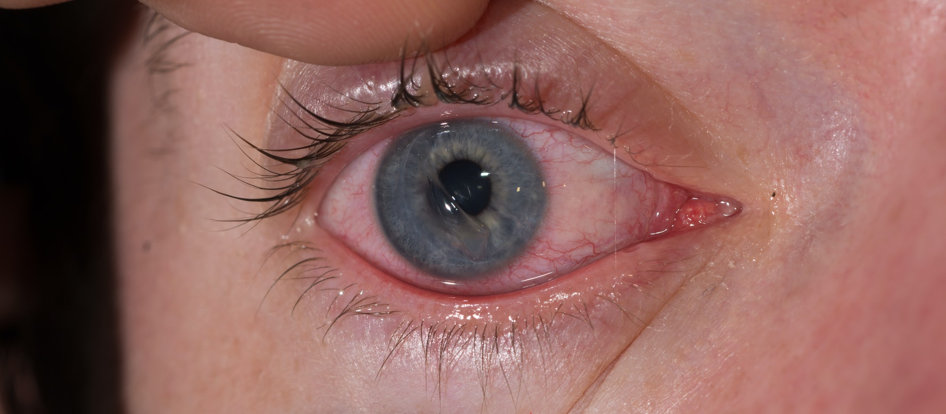 pain when moving the eye symptoms causes common questions buoy