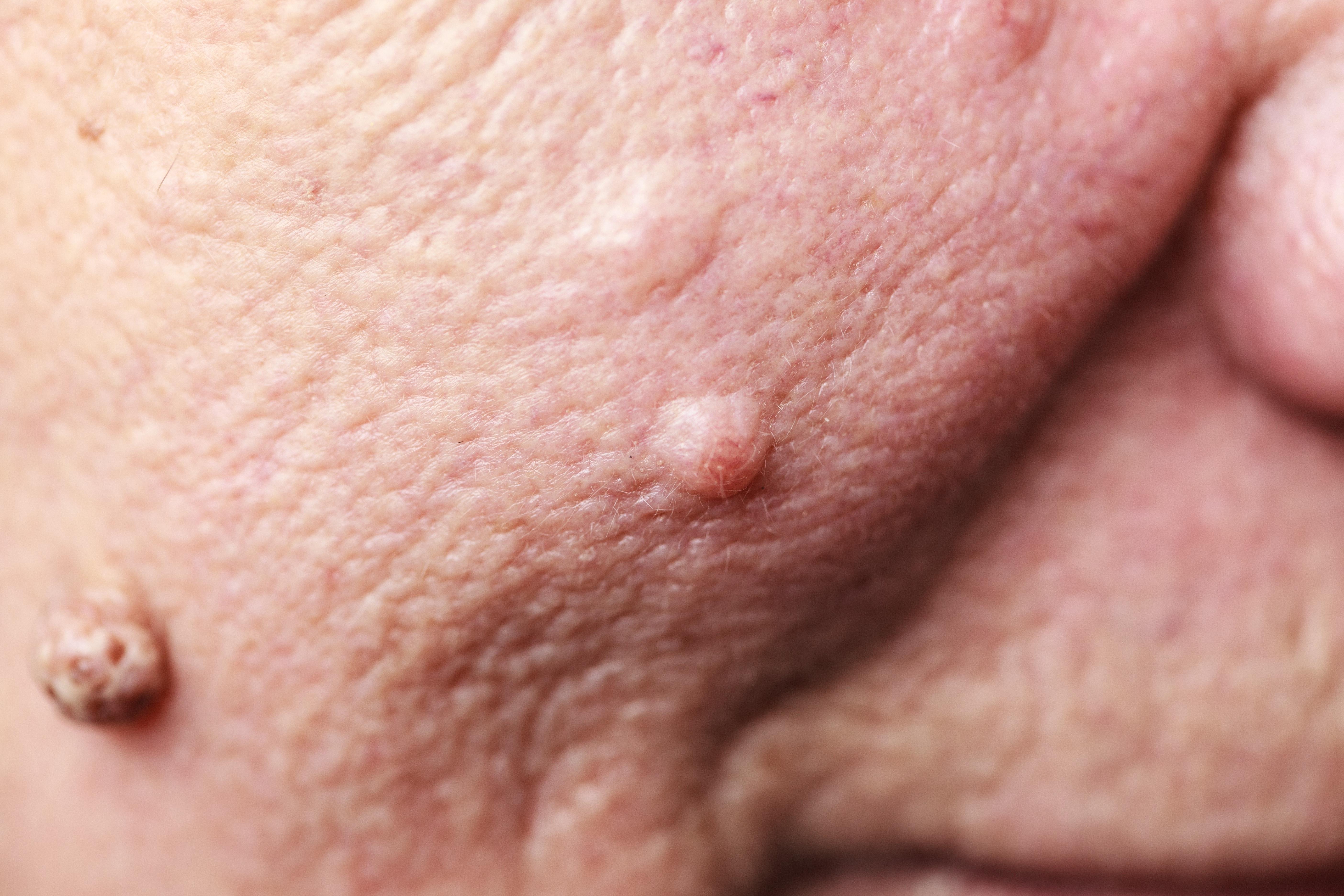 Fleshy bumps on vagina