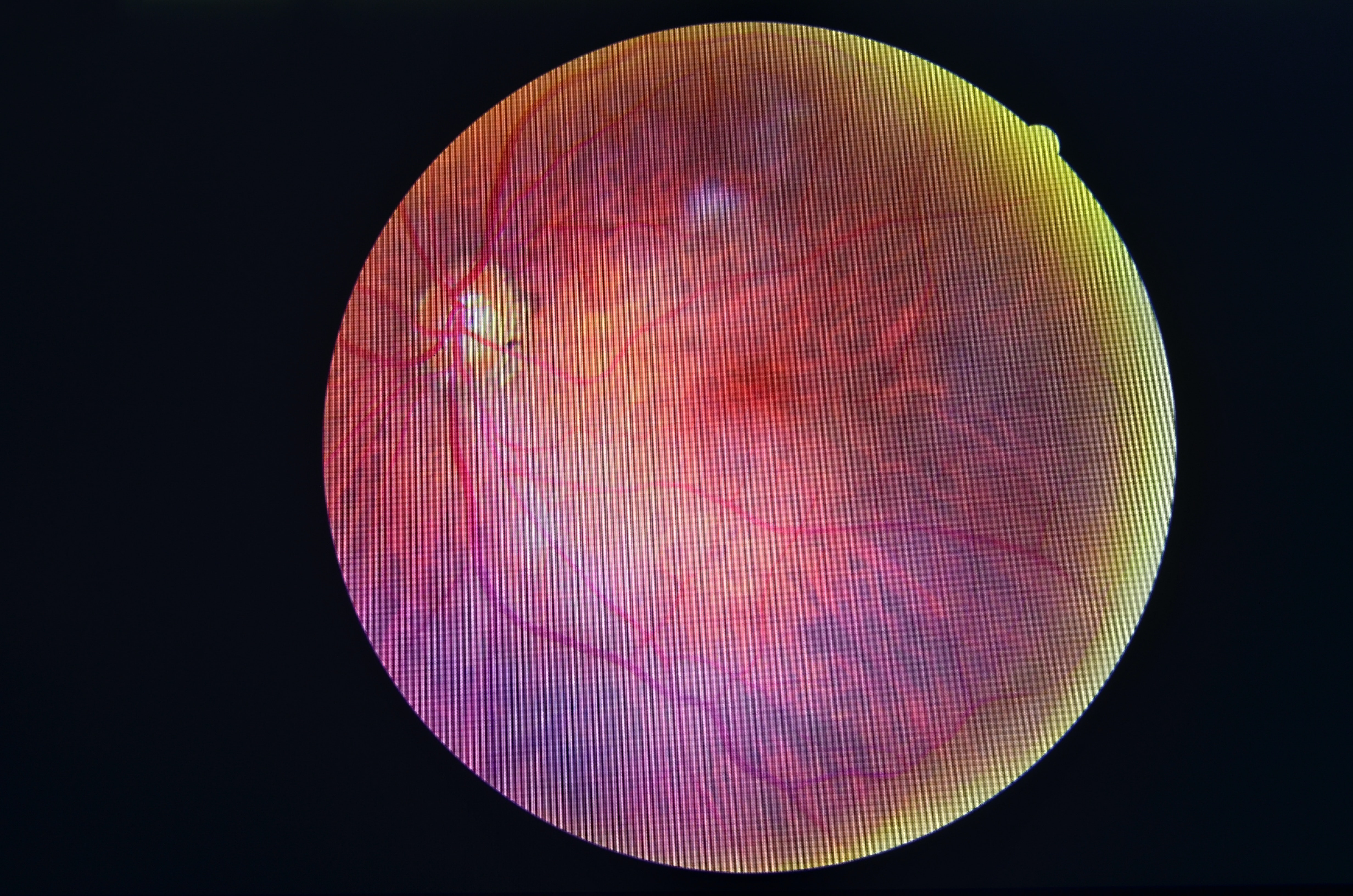 An image depicting a person suffering from Diabetic Retinopathy symptoms