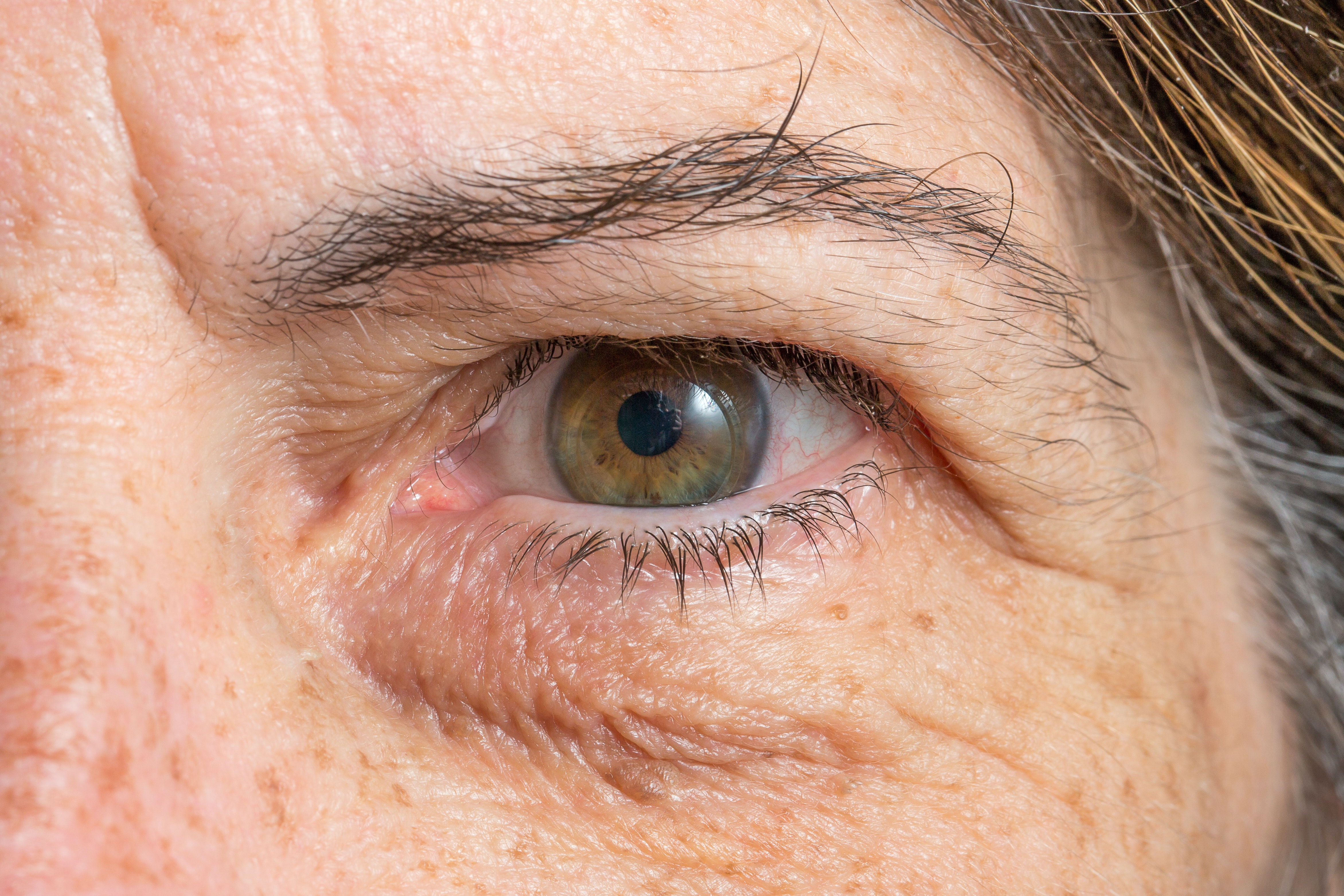 An image depicting a person suffering from drooping eyelid symptoms
