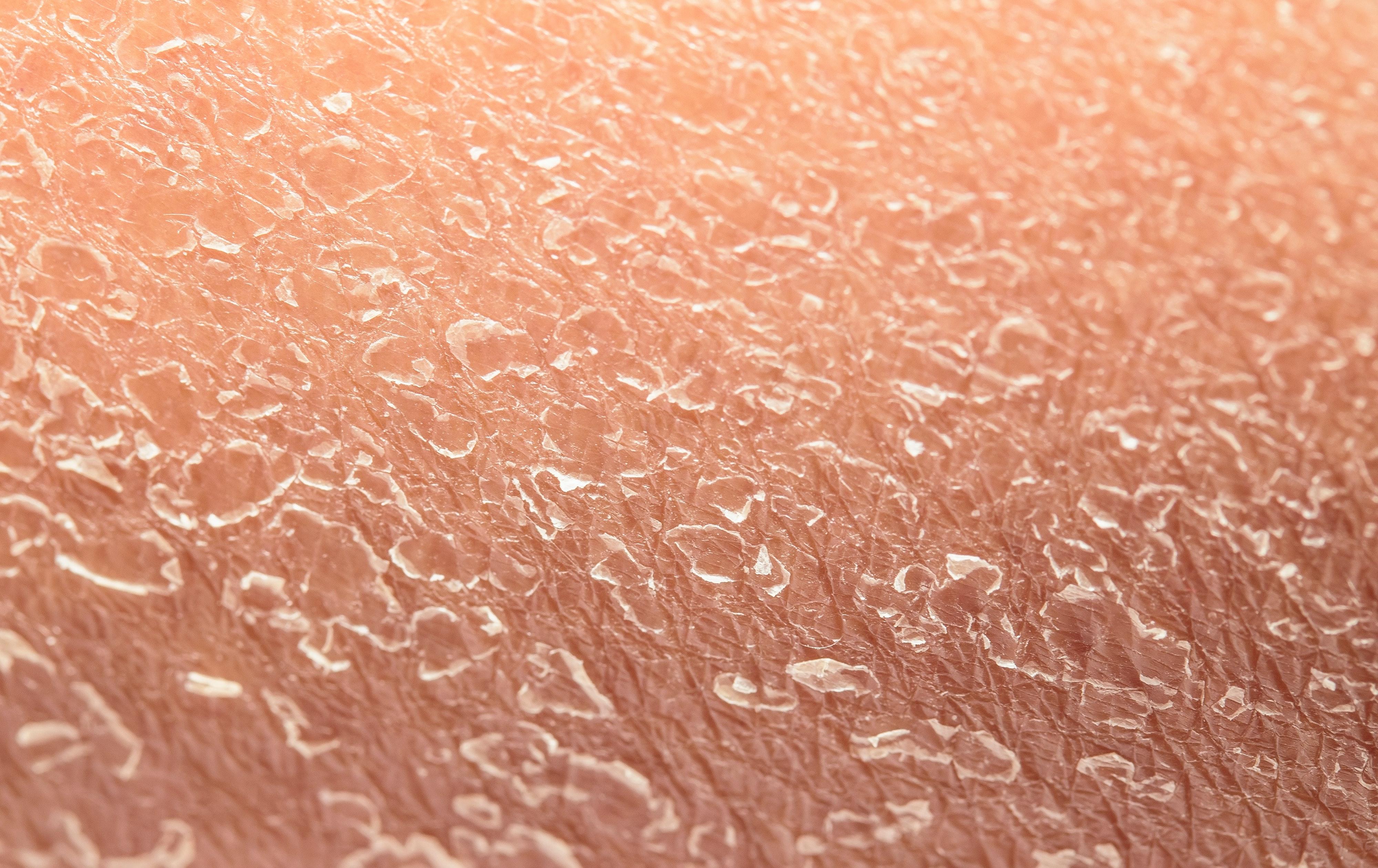 dry flaky skin