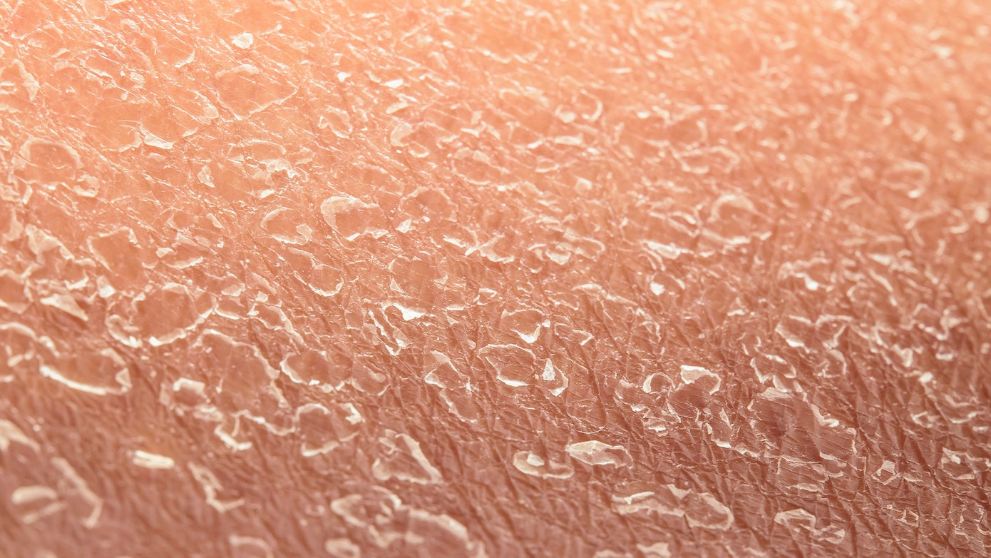 Dry, Flaking Skin Symptoms, Causes & Common Questions   Buoy