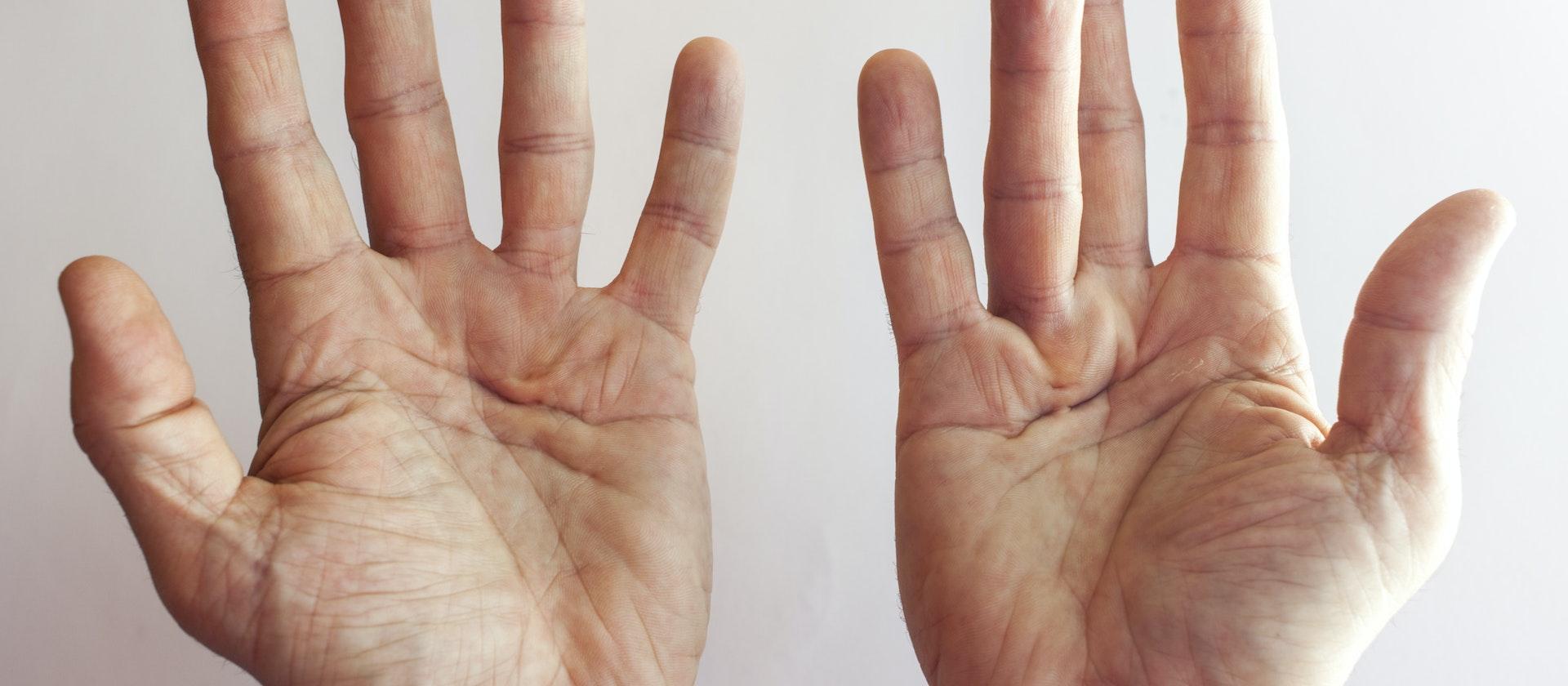 swollen thumb symptoms causes treatment options buoy