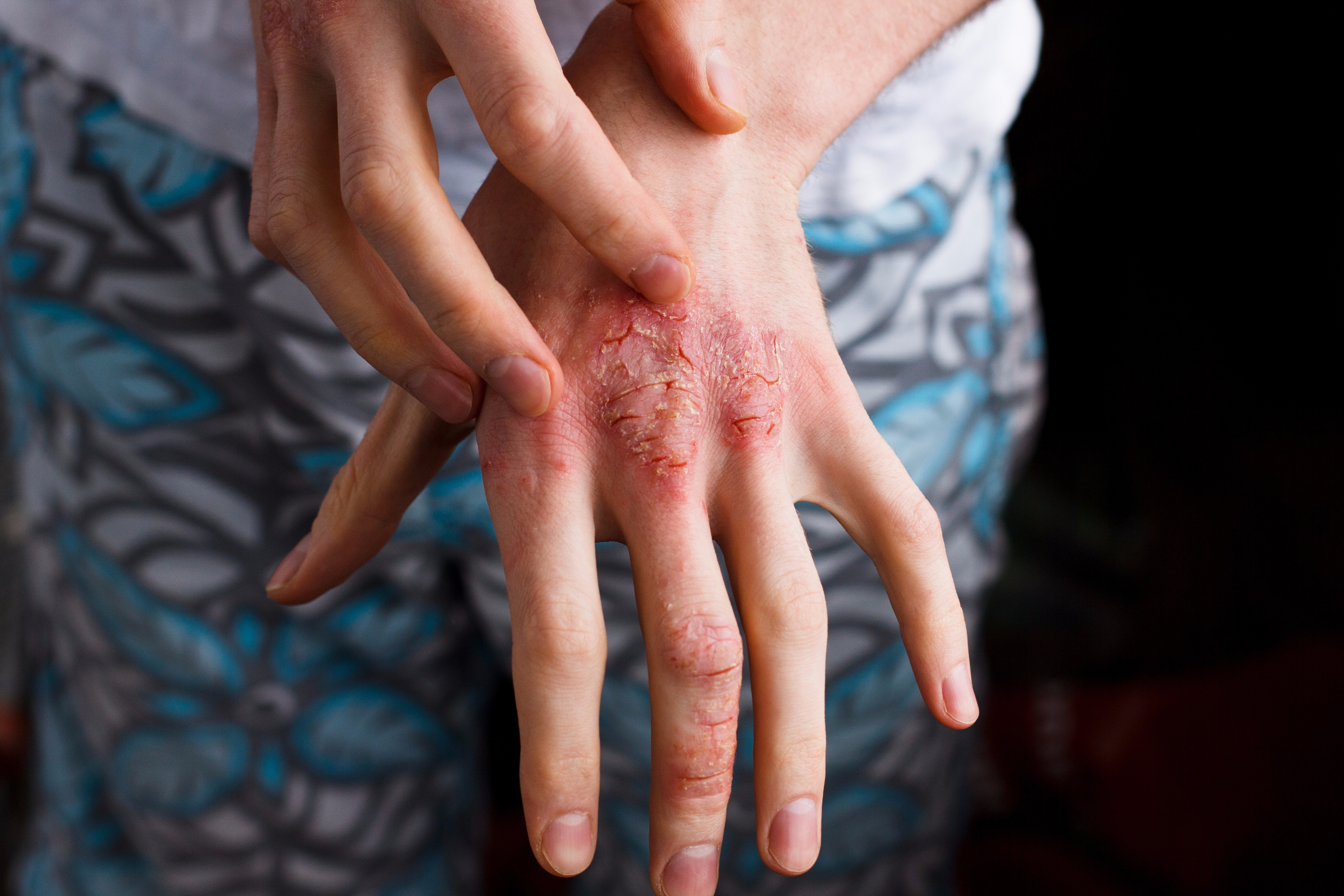 An image depicting a person suffering from Eczema (Atopic Dermatitis) symptoms
