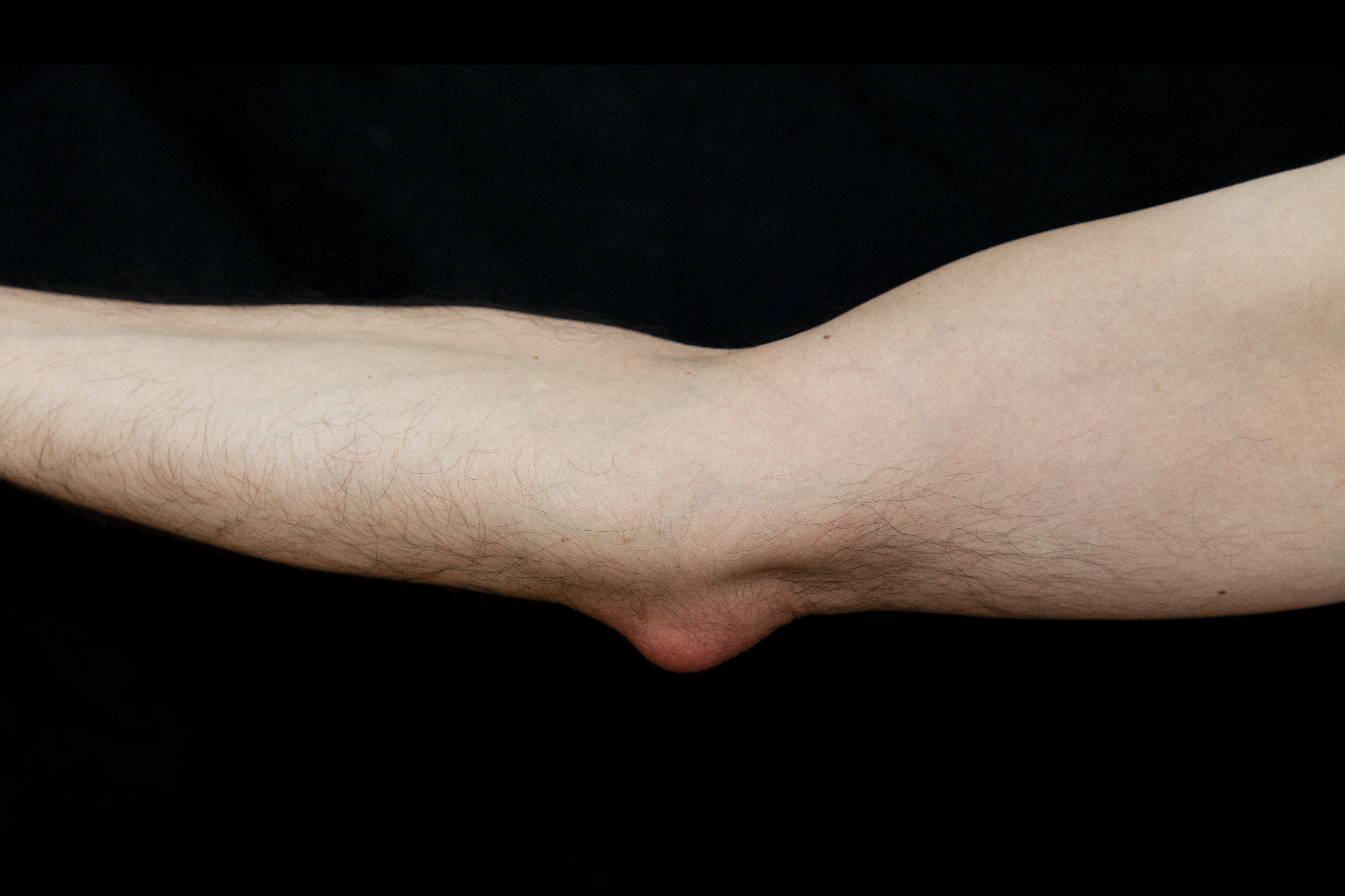 An image depicting a person suffering from elbow bump symptoms