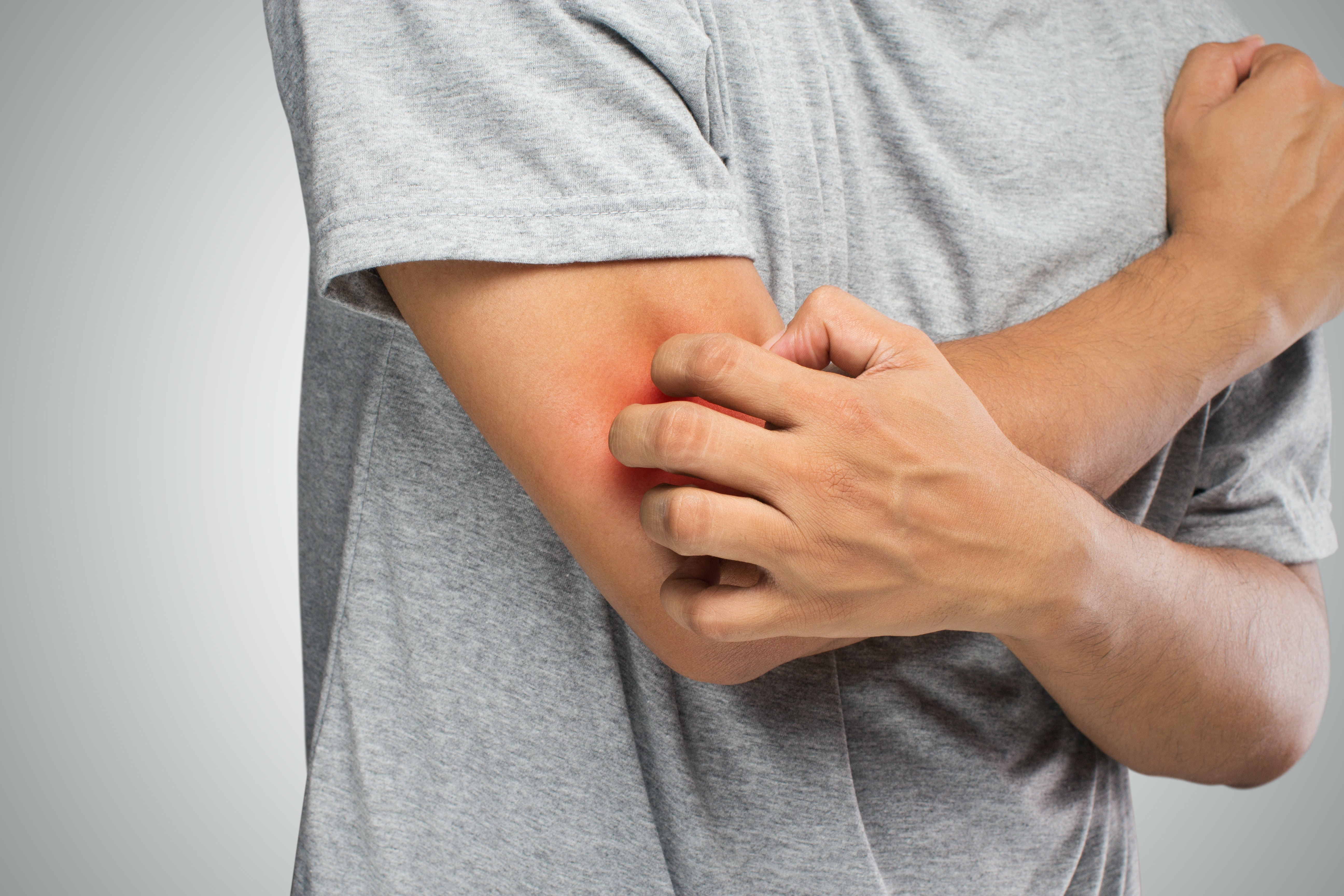 An image depicting a person suffering from elbow itch symptoms