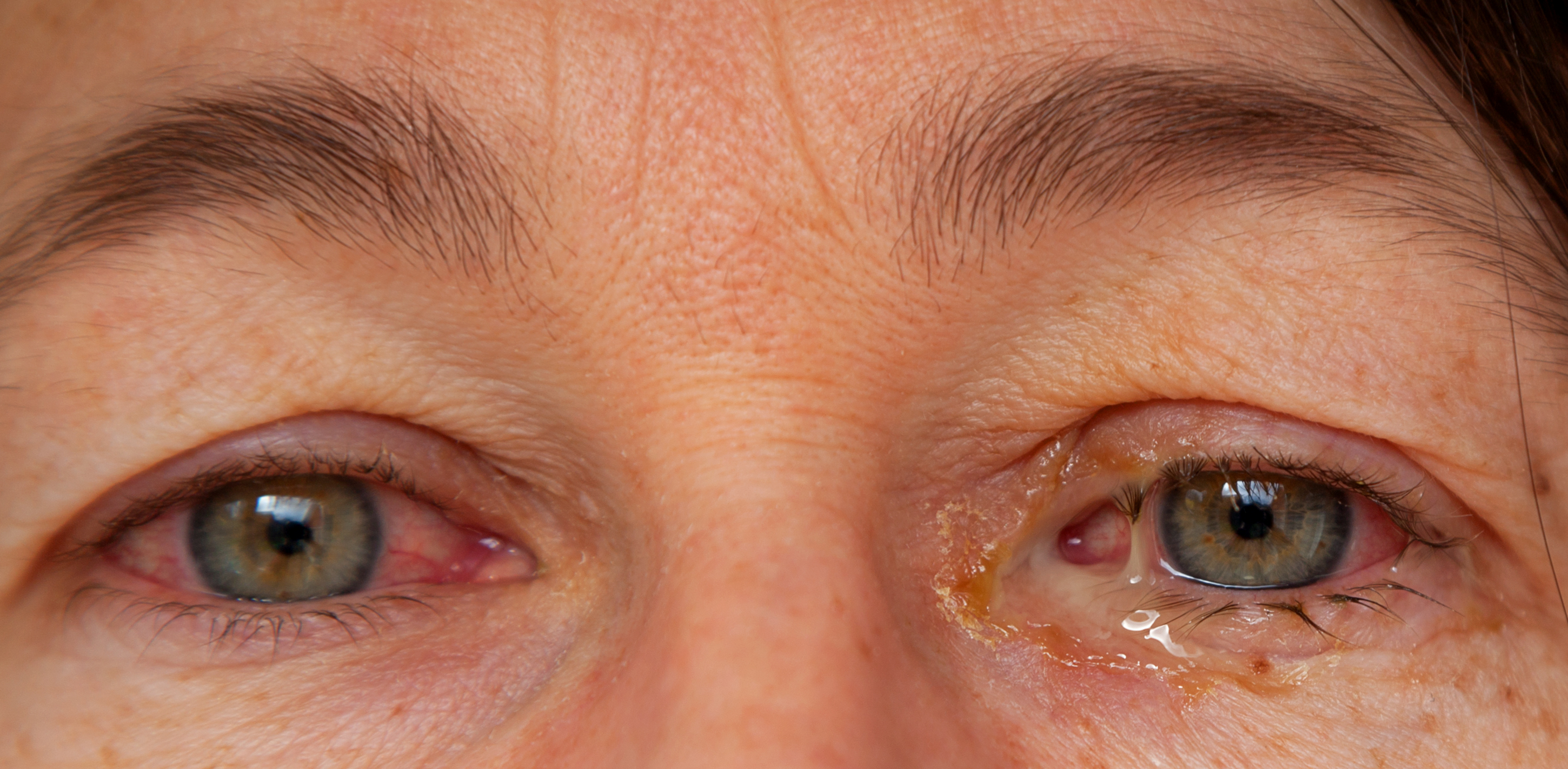 6 Eye Discharge Causes | How to Treat Discharge From the Eye