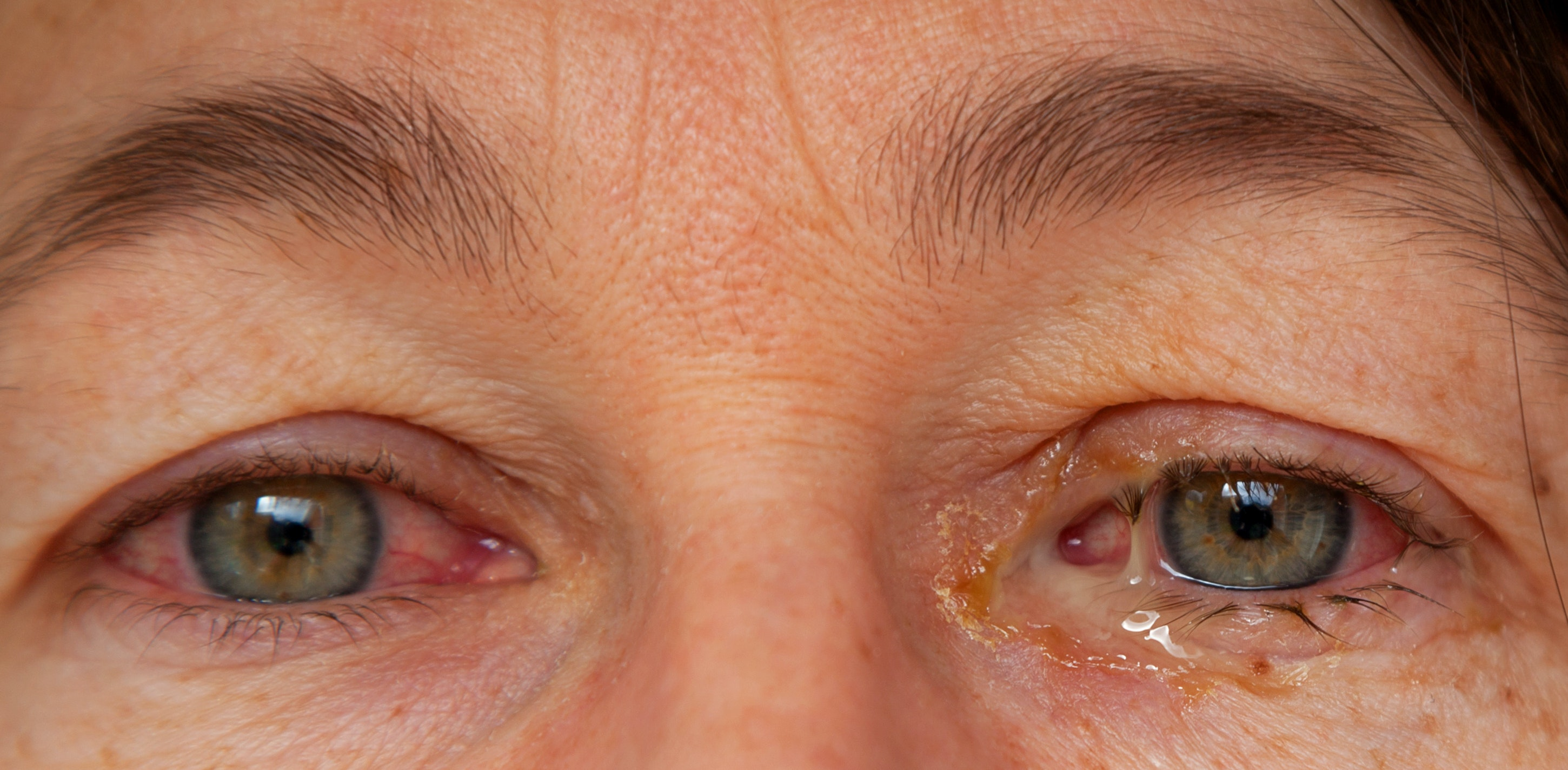 An image depicting a person suffering from eye discharge symptoms