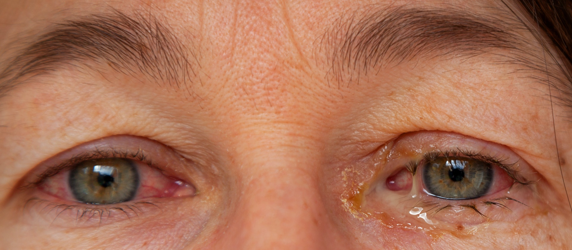 Sinus Infection Pink Eye Allergies Top 9 Eye Discharge Causes Buoy