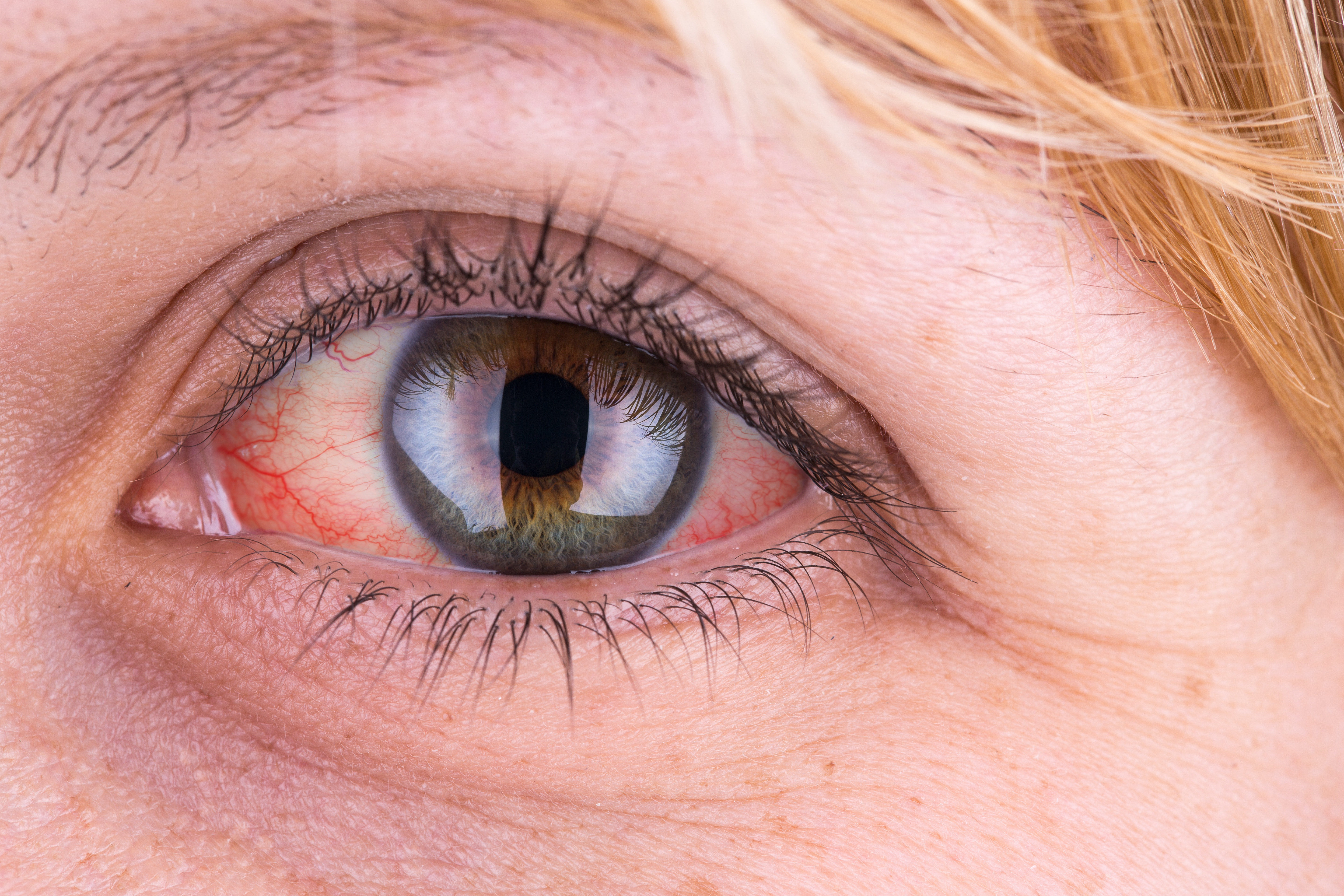 Causes of redness of the eyes - what they are 58