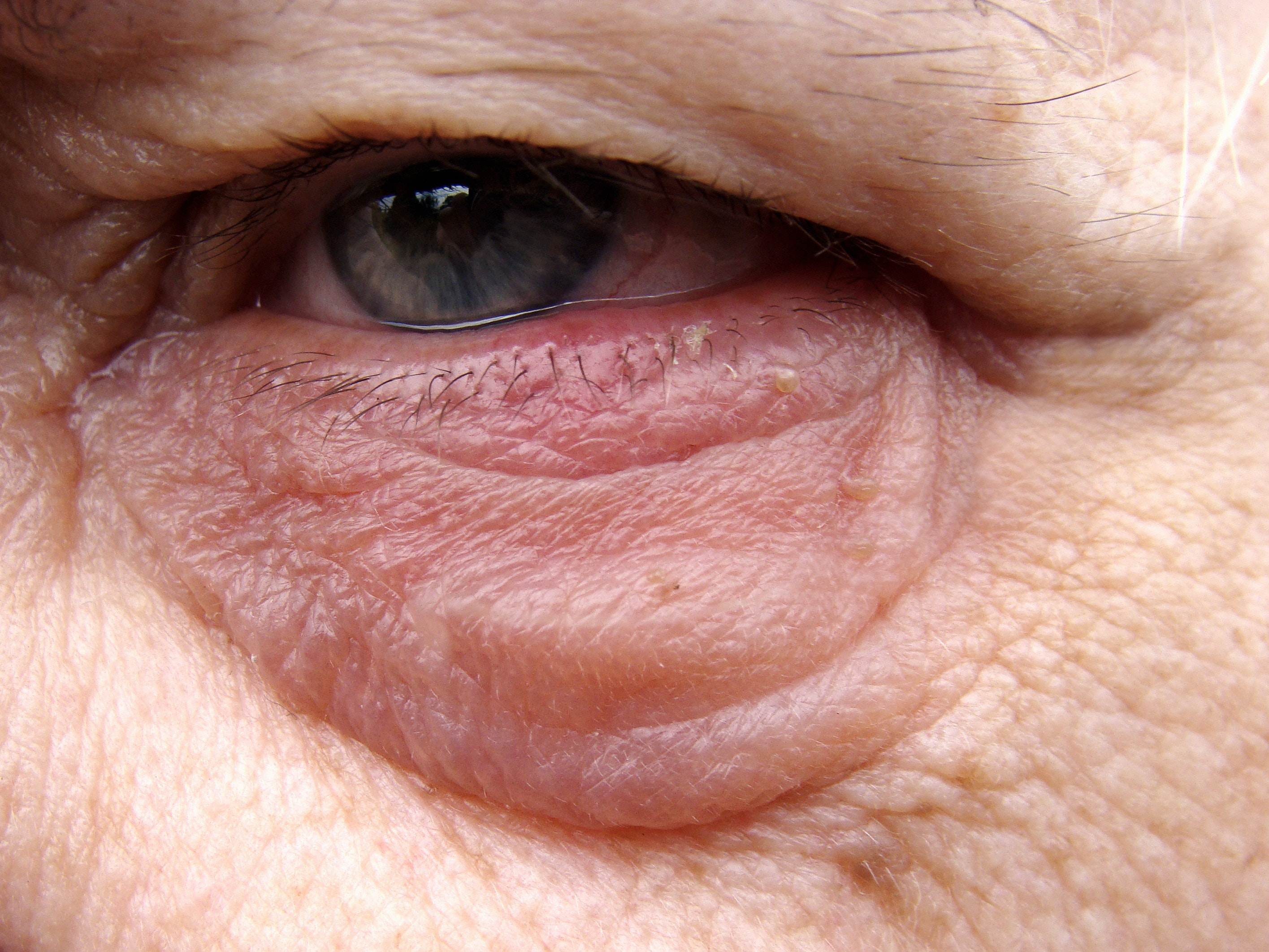 An image depicting a person suffering from eyelid lump symptoms
