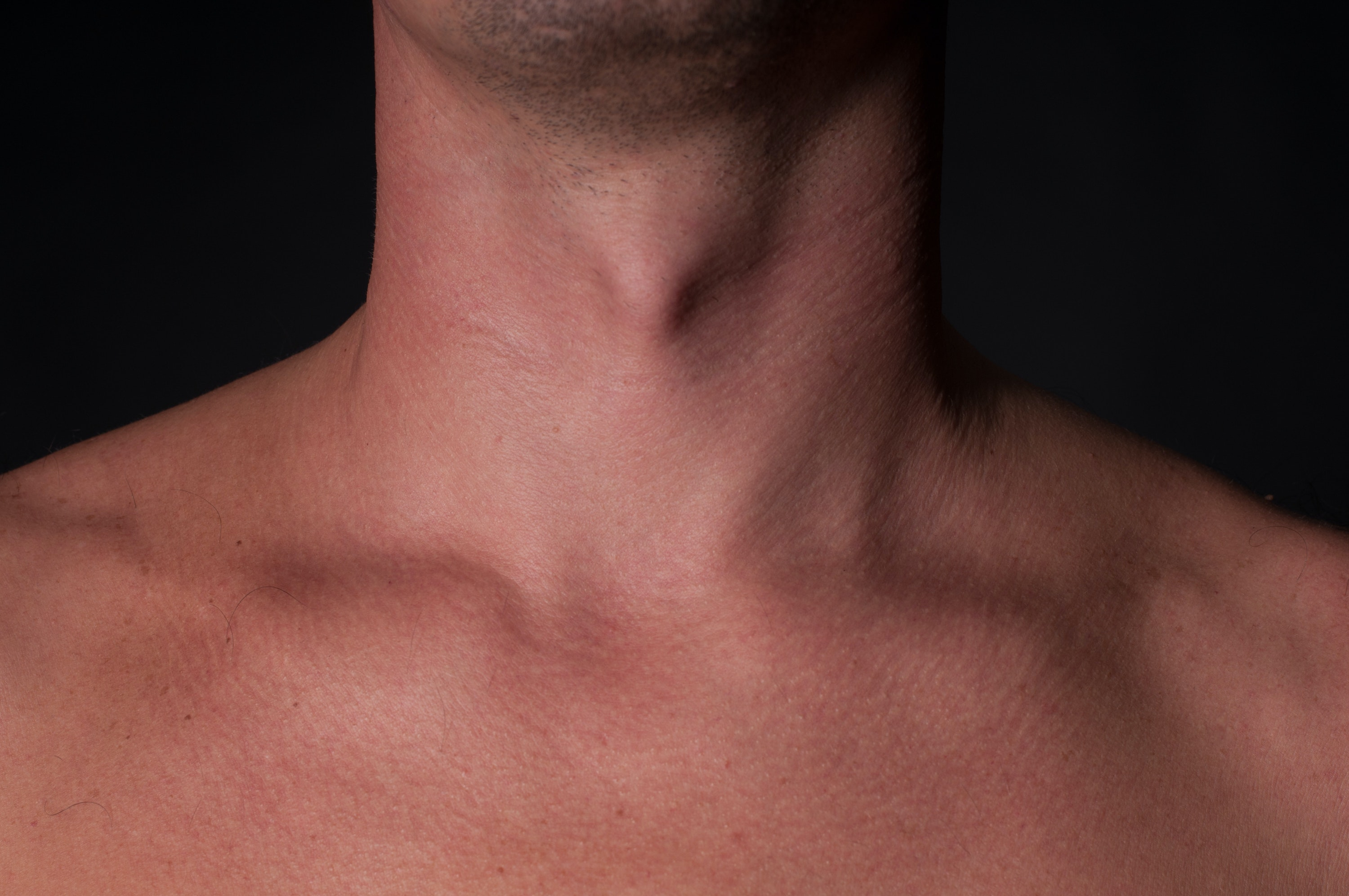 An image depicting a person suffering from fat pads on top of the collarbone symptoms
