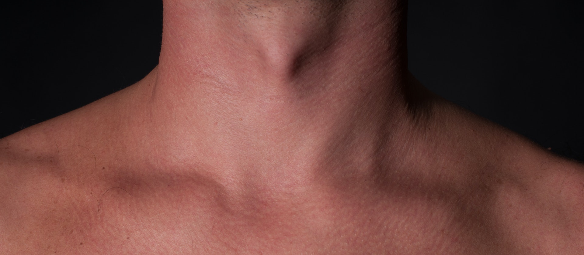 fat pads on top of the collarbone symptom causes questions buoy