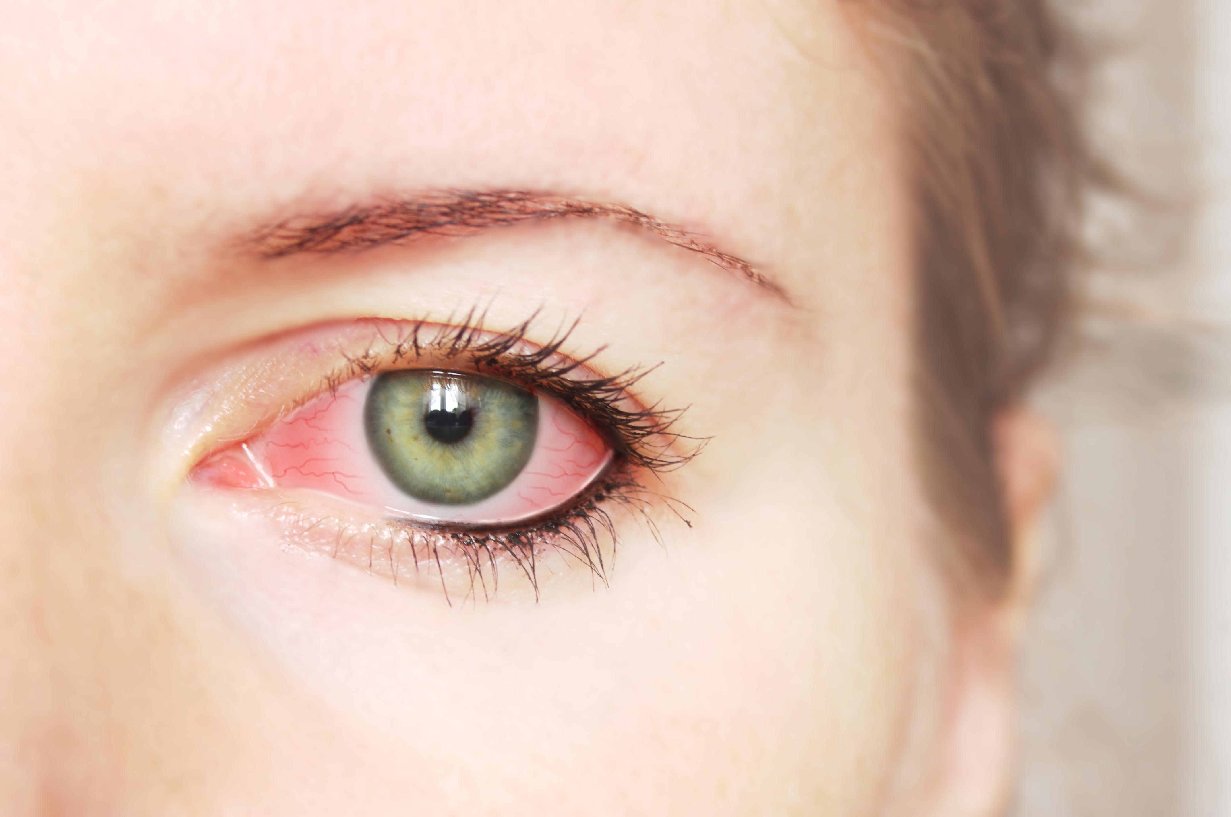 Feels Like Something is in the Eye? Here's What You Need to Know