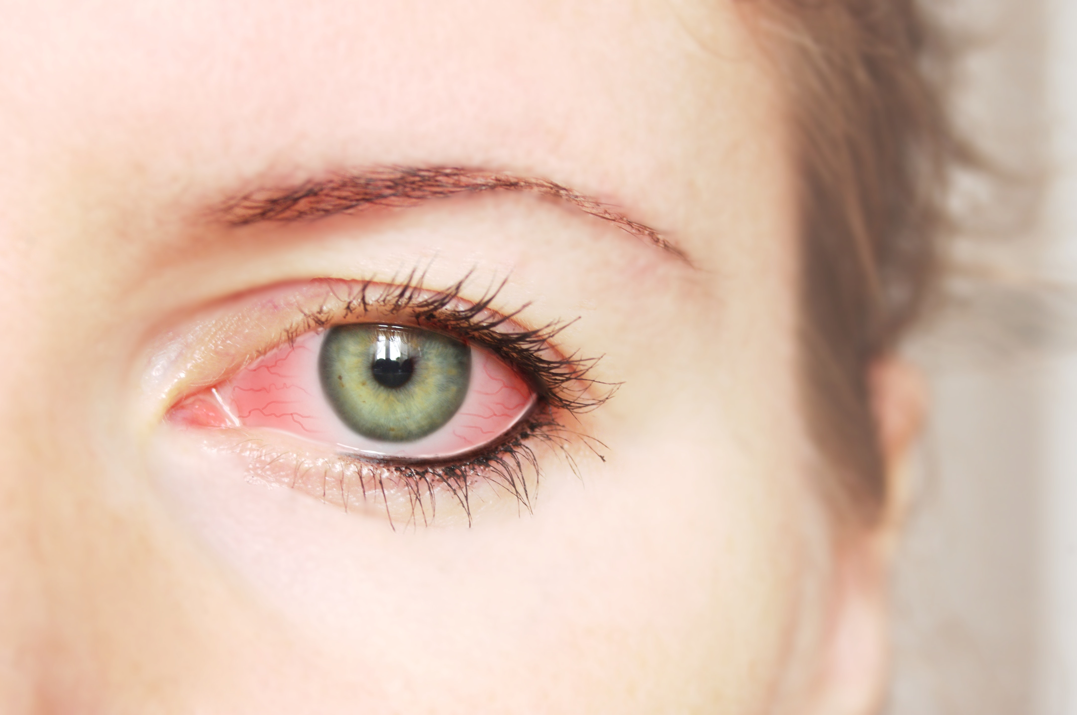 An image depicting a person suffering from feeling of something in the eye symptoms