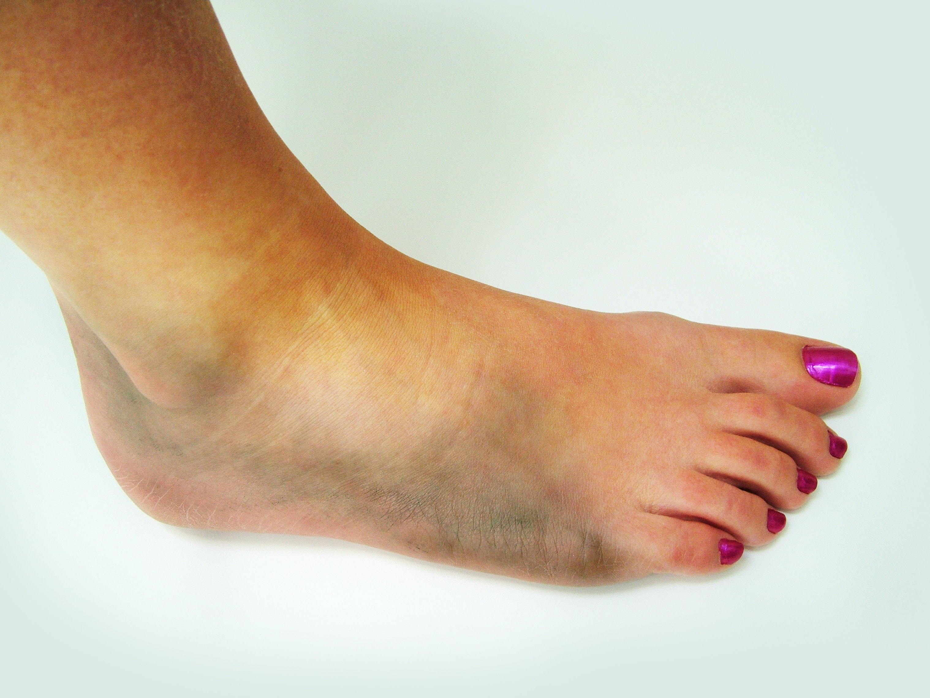 An image depicting a person suffering from foot bruise symptoms