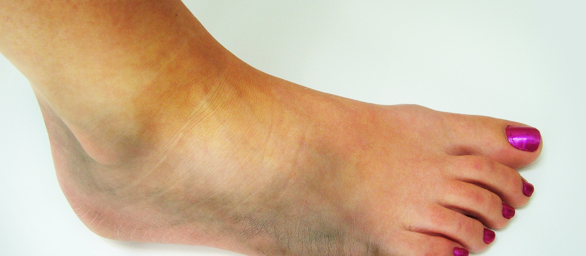 foot bruise symptoms, causes & common questions | buoy