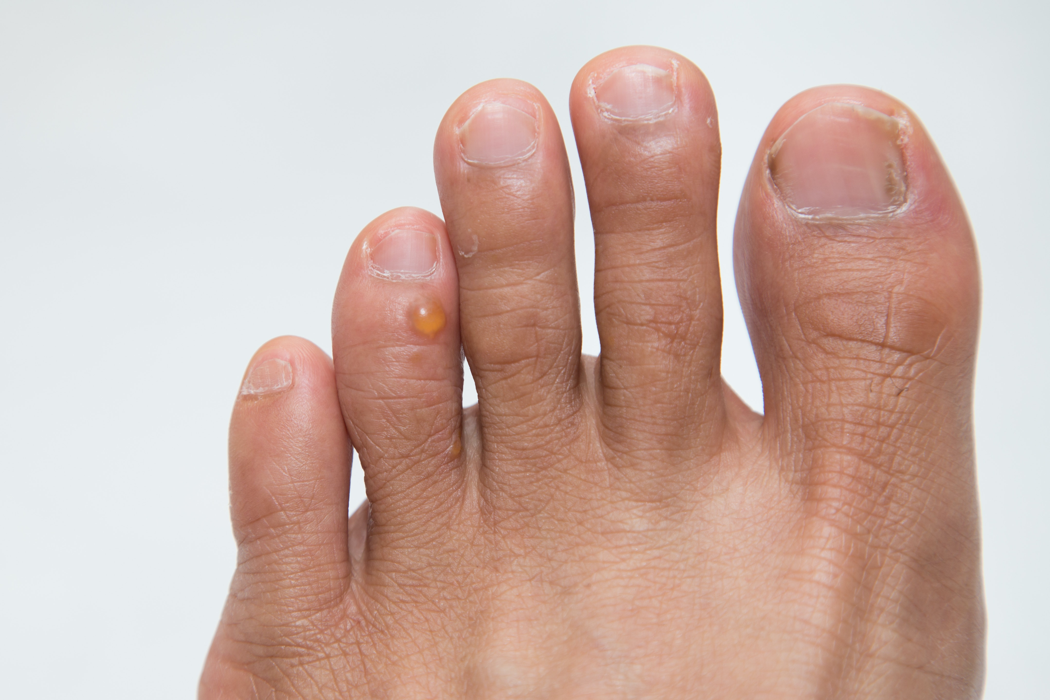 An image depicting a person suffering from foot bump symptoms