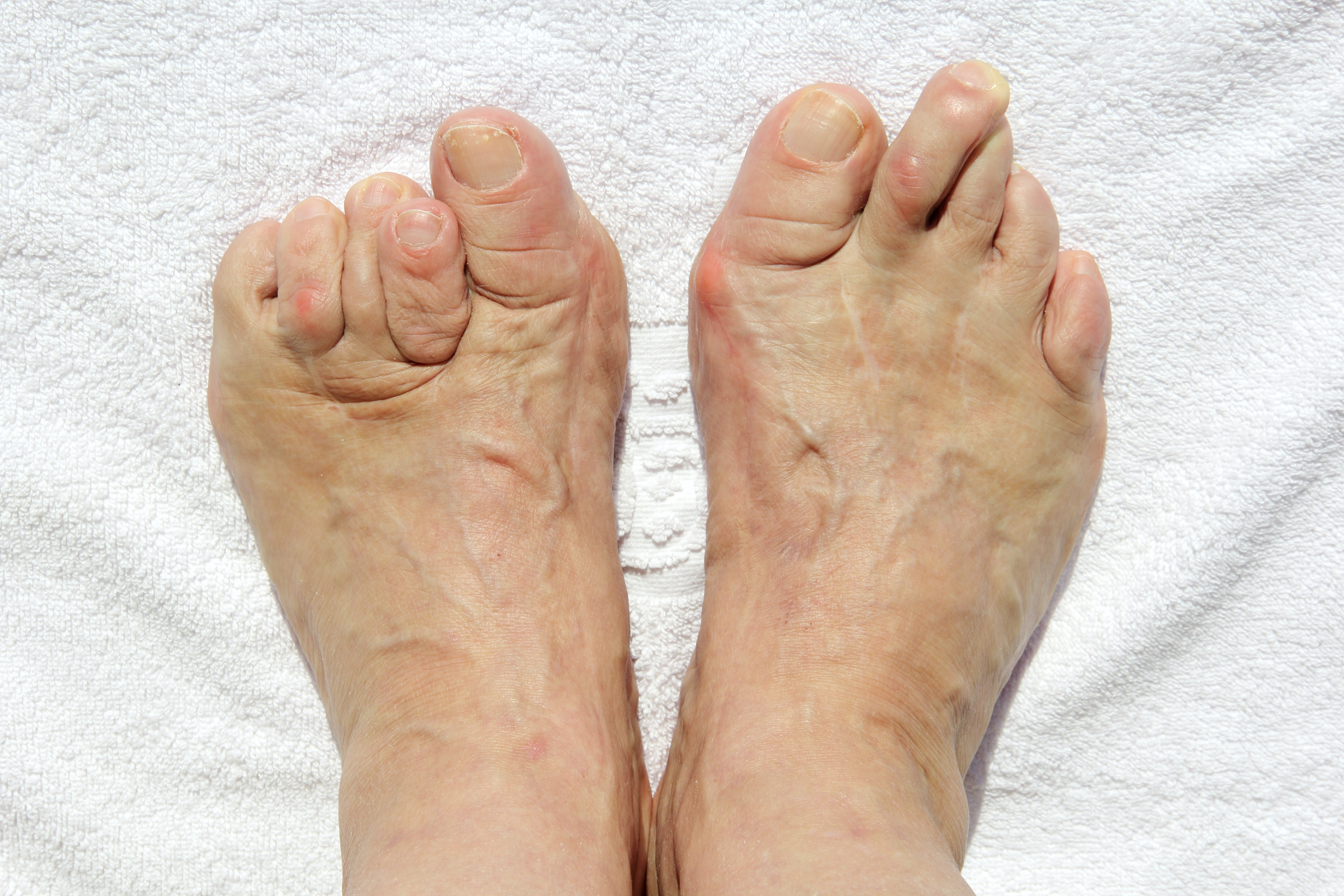 An image depicting a person suffering from foot deformity symptoms