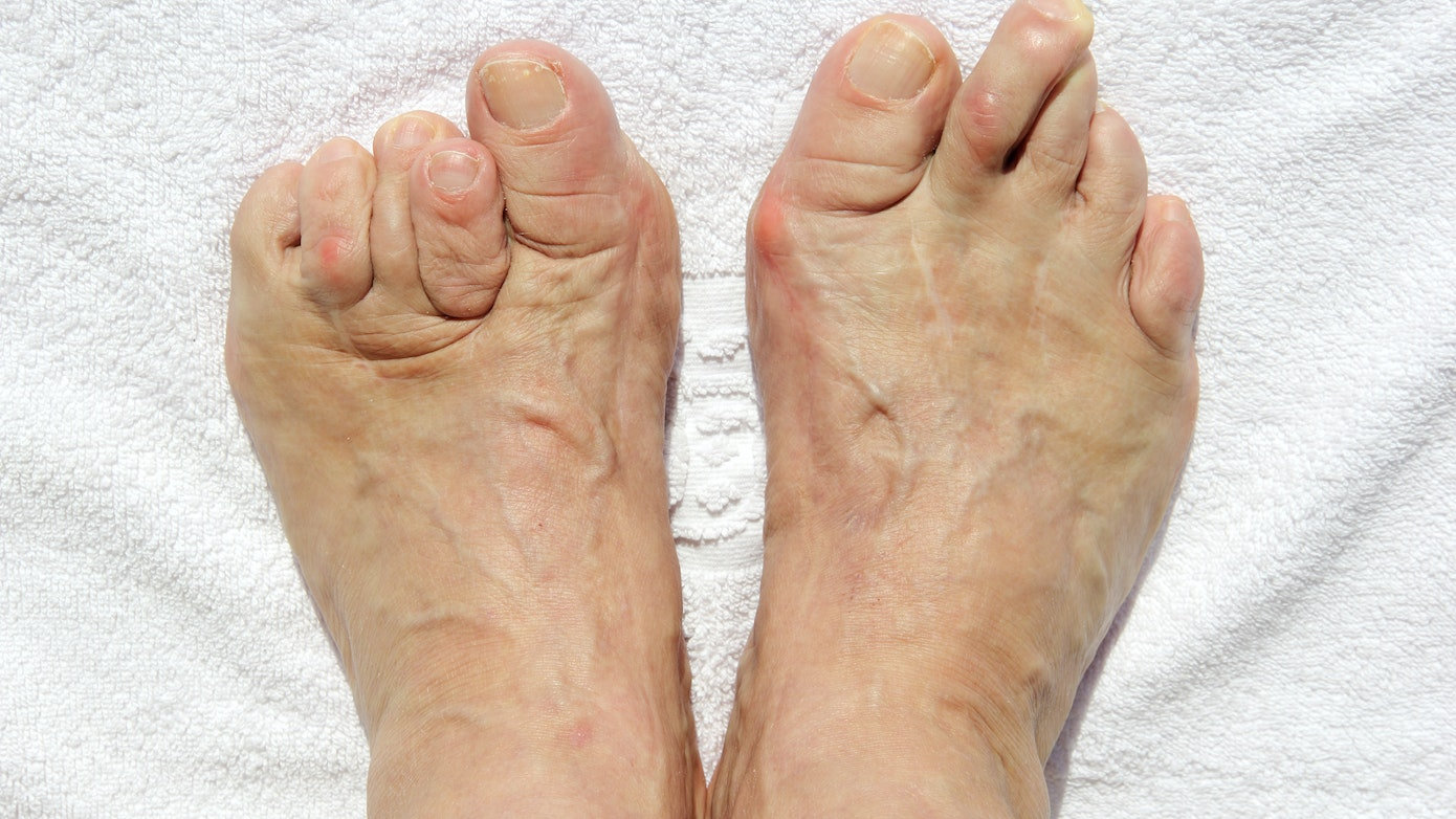 Foot Deformity Symptoms, Causes & Common Questions | Buoy