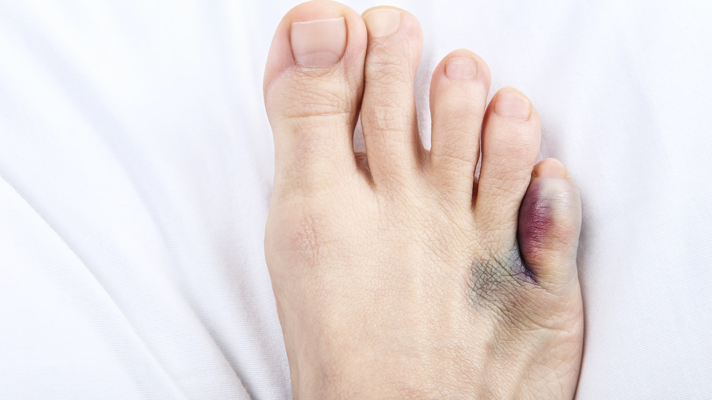 Injuries That Cause Bruised Toe or Foot | Buoy