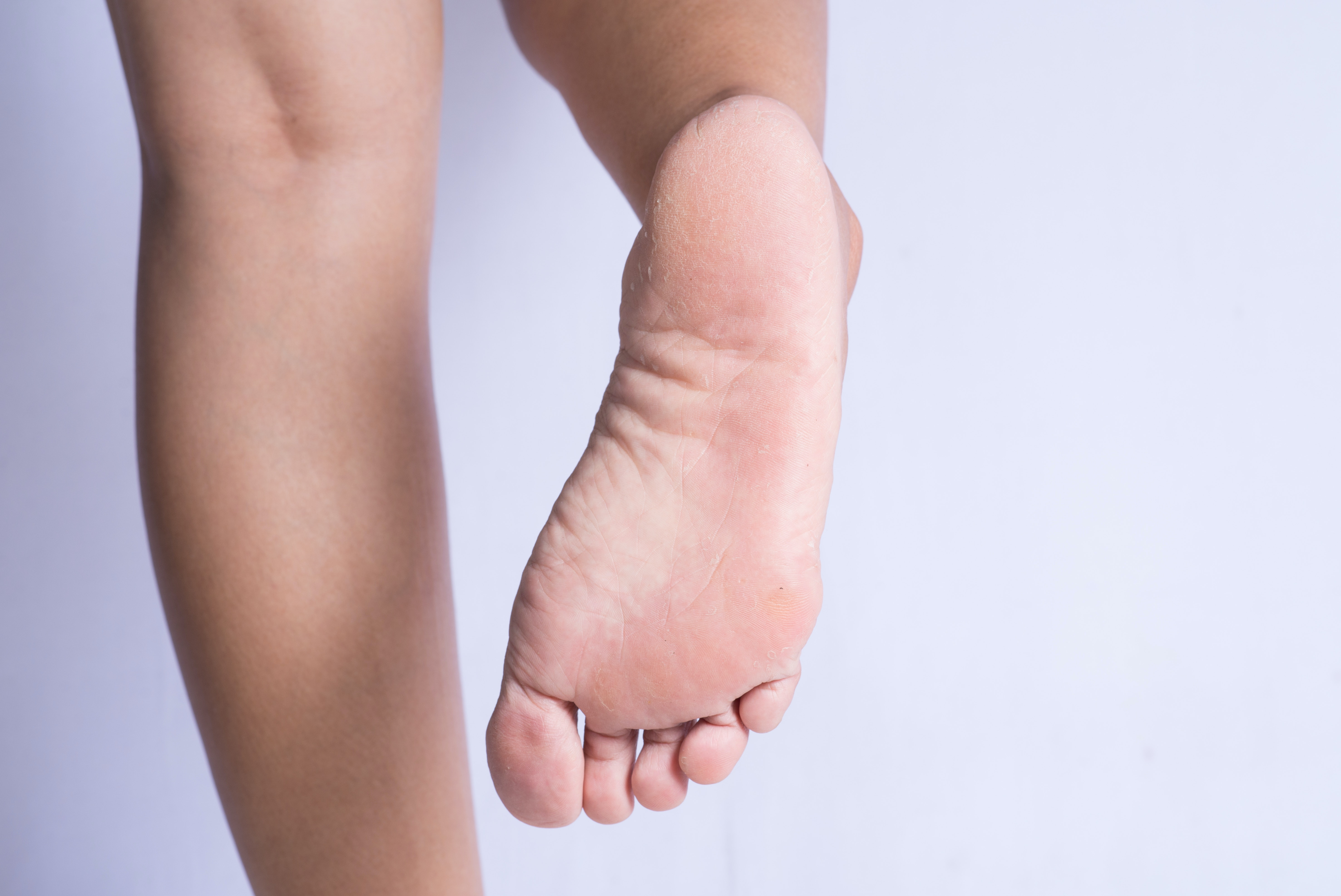 An image depicting a person suffering from foot peeling symptoms