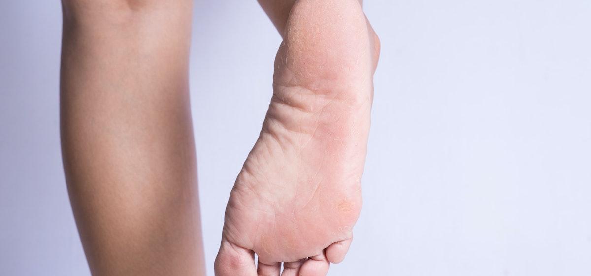 What Causes Peeling Feet | Why is the Skin Peeling on my Feet | Buoy