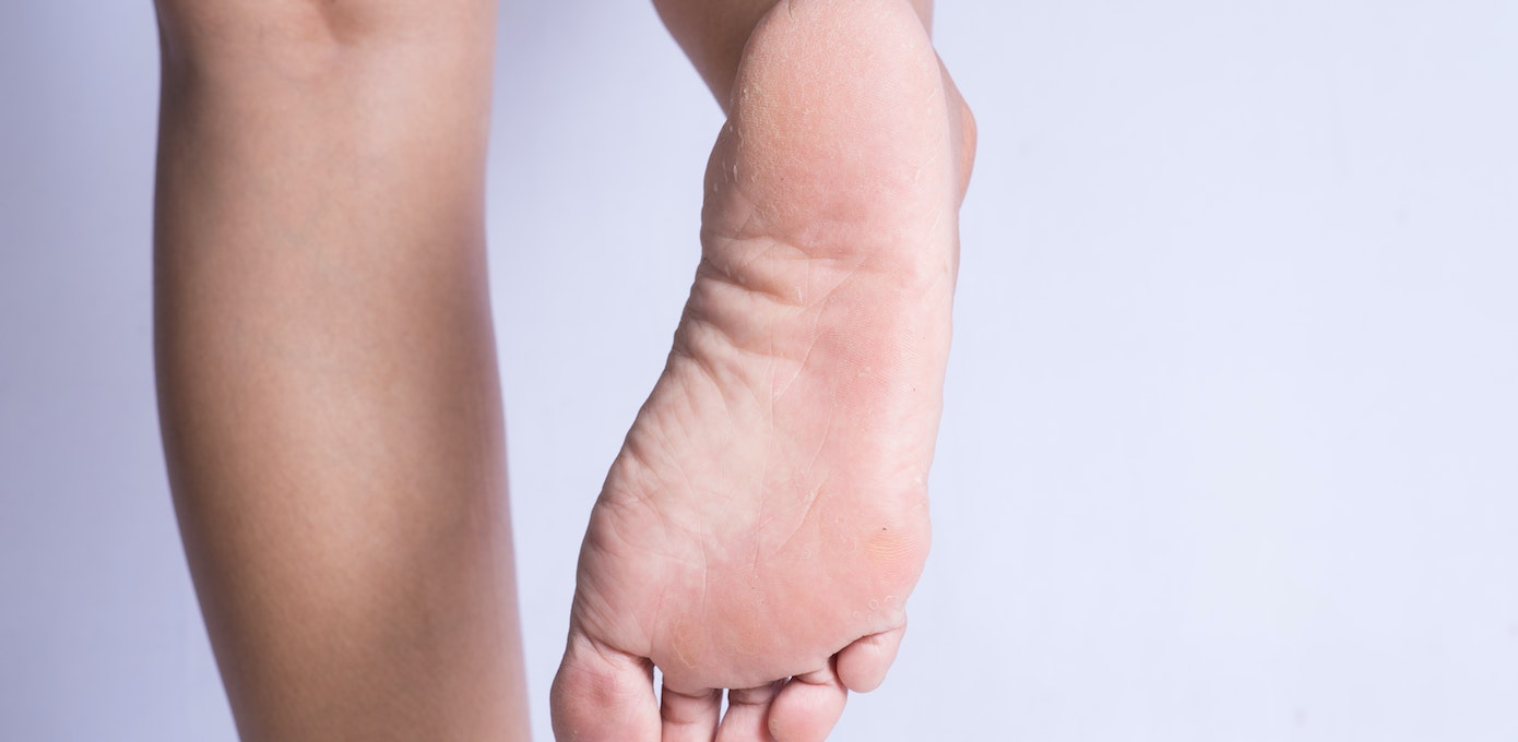 itchy cracked feet causes
