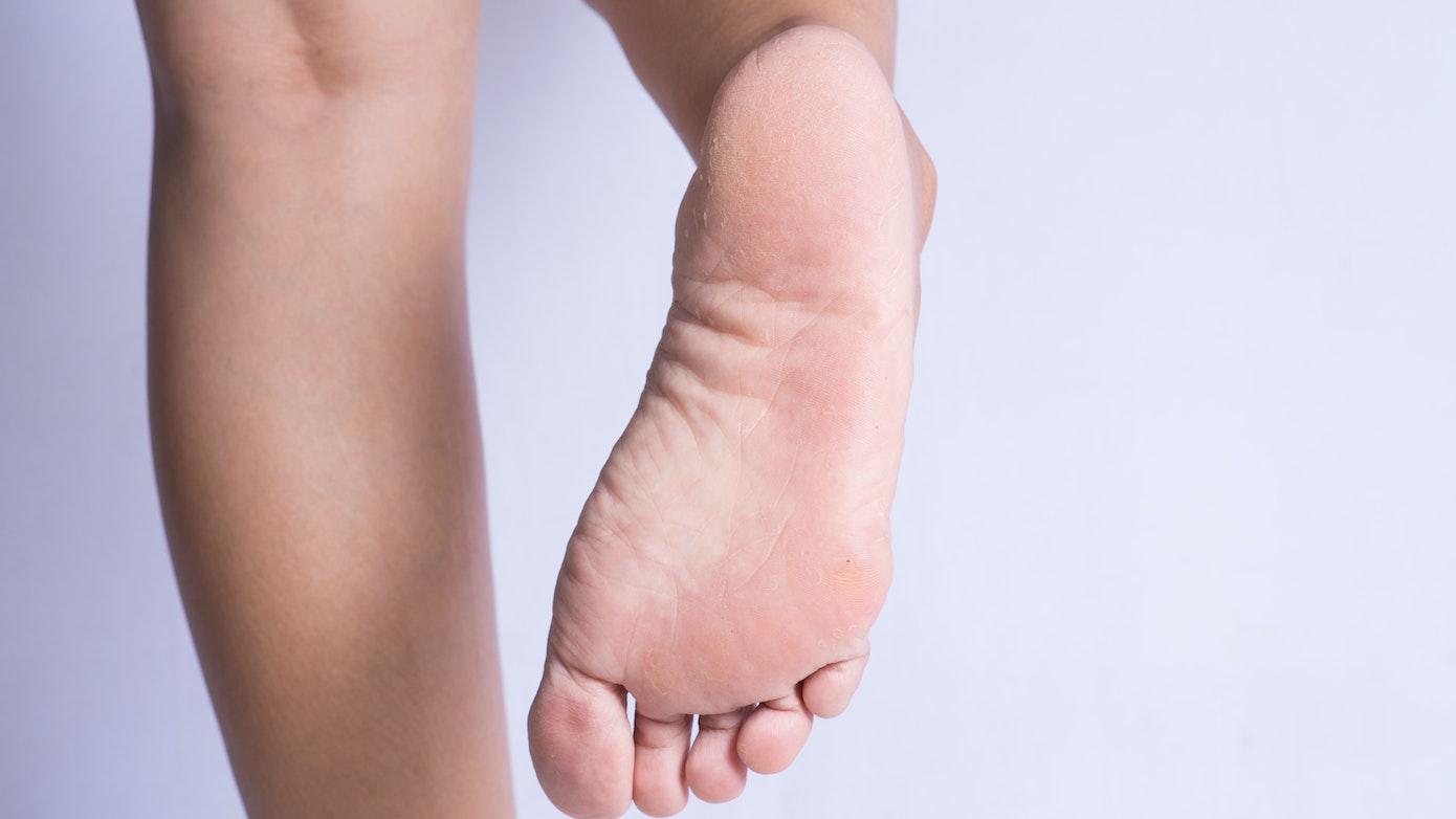 What Causes Peeling Feet | Why is the Skin Peeling on my