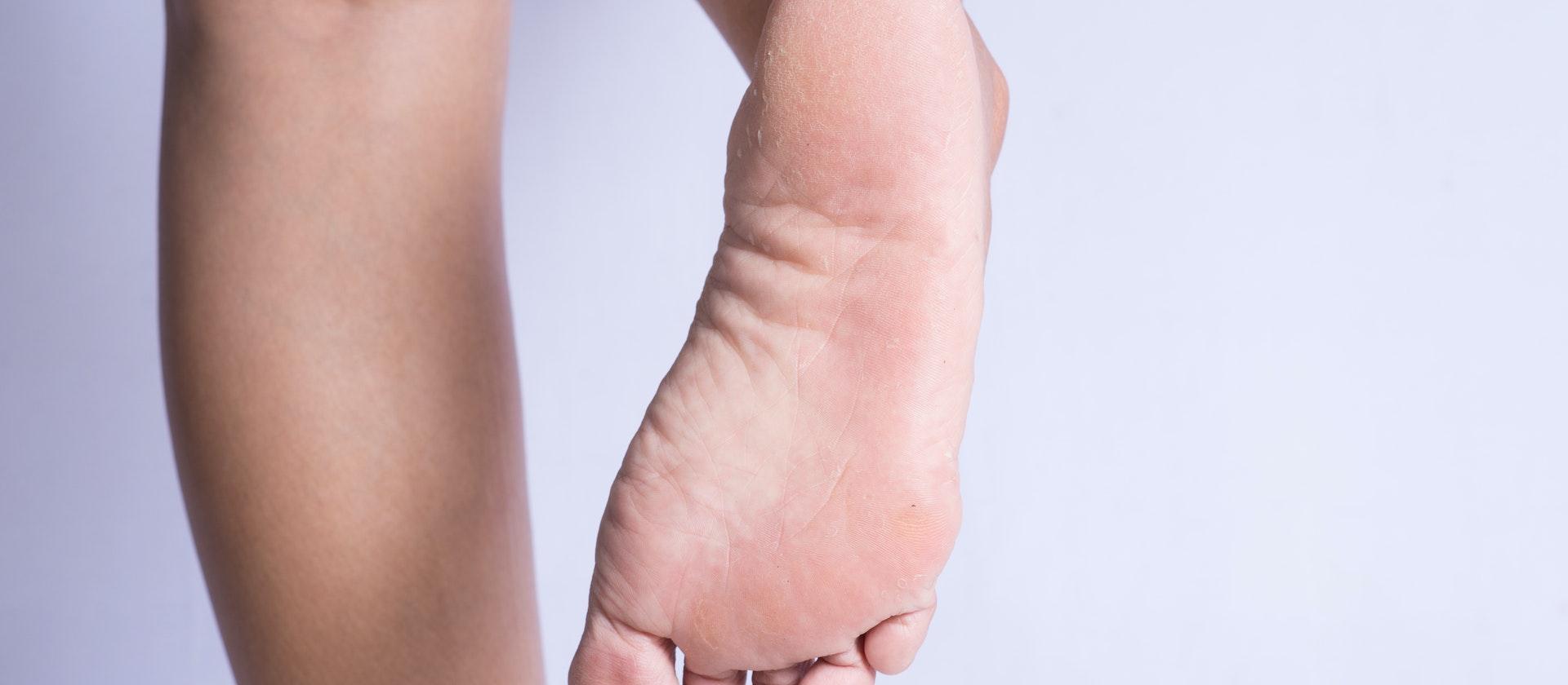 foot peeling symptoms causes treatment options buoy