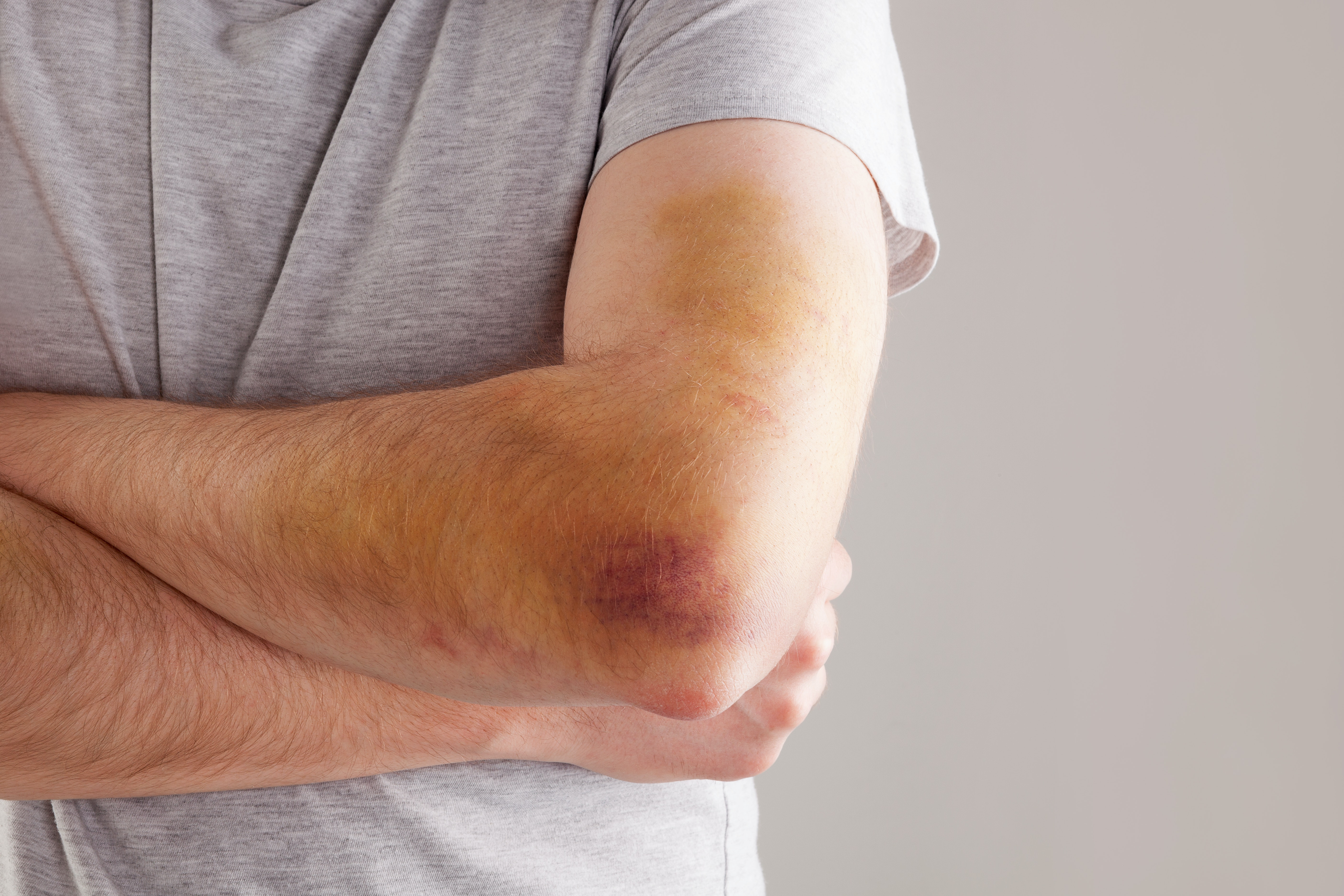 An image depicting a person suffering from forearm bruise symptoms